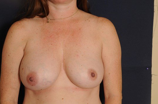 Breast Implant Replacement Before
