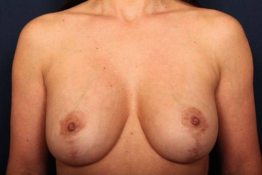 Breast Lift w/ Replacement Before