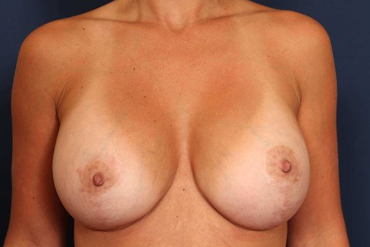 Breast Lift w/ Replacement After