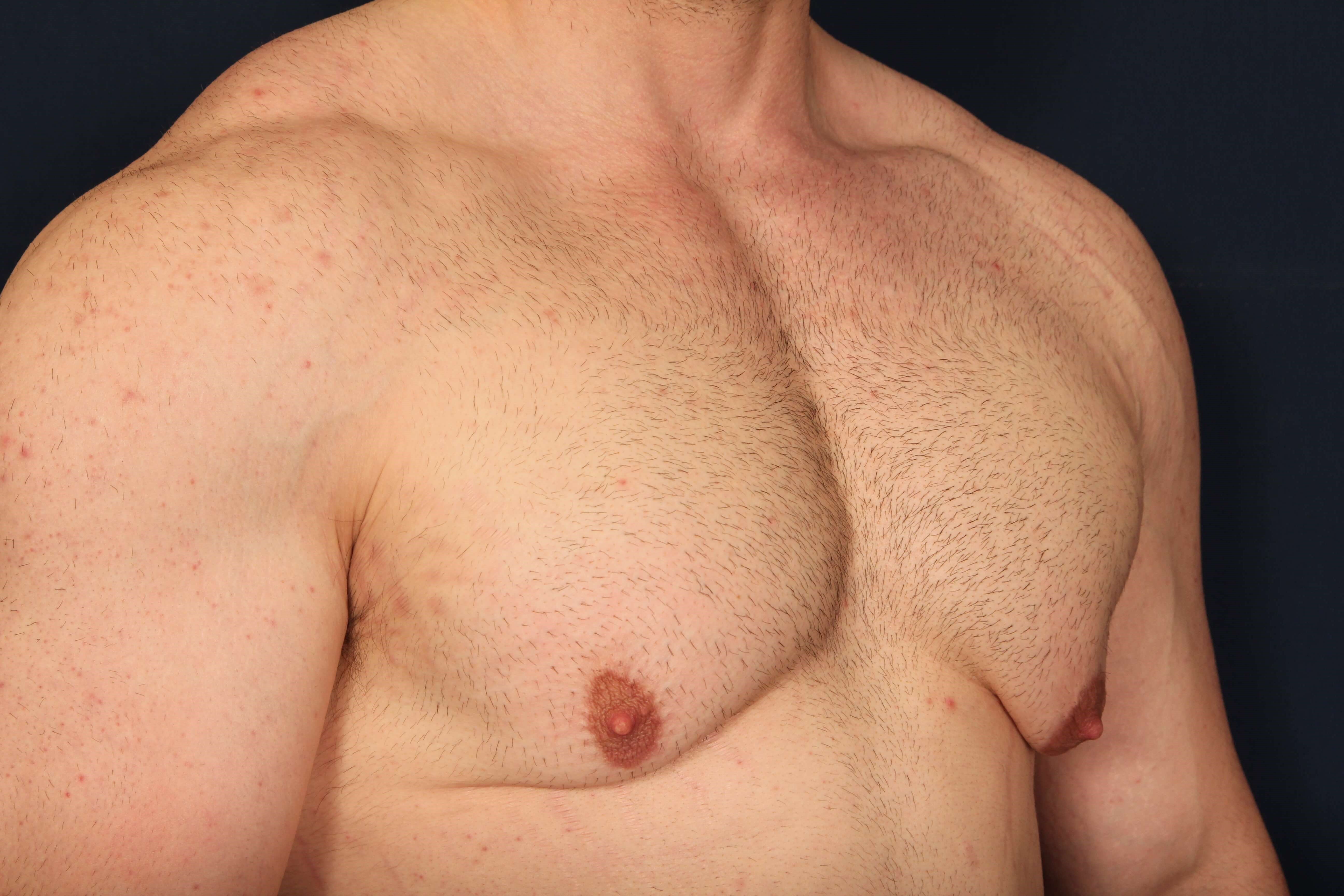 Gynecomastia w/ Breast Lift Before