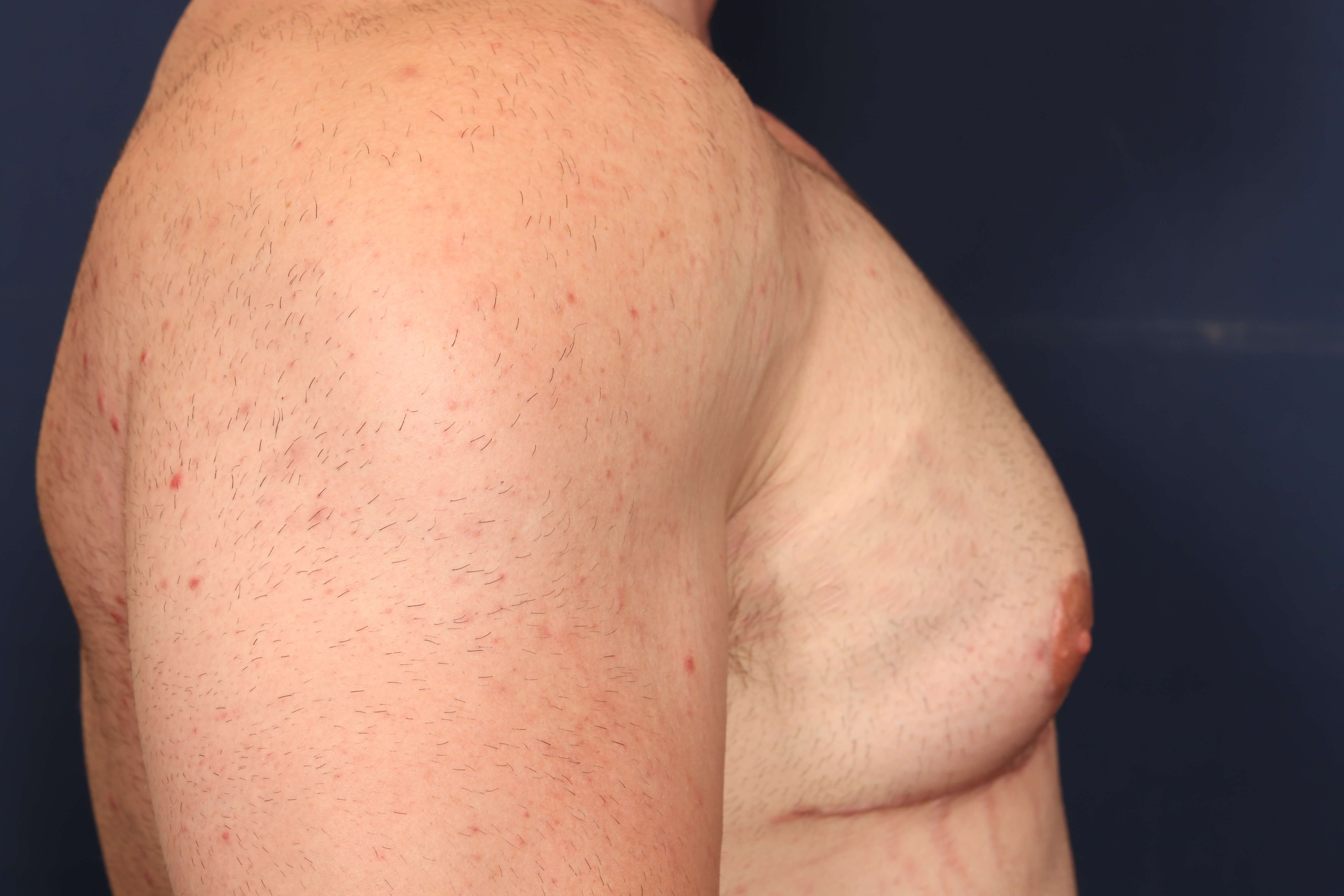 Gynecomastia w/ Breast Lift After