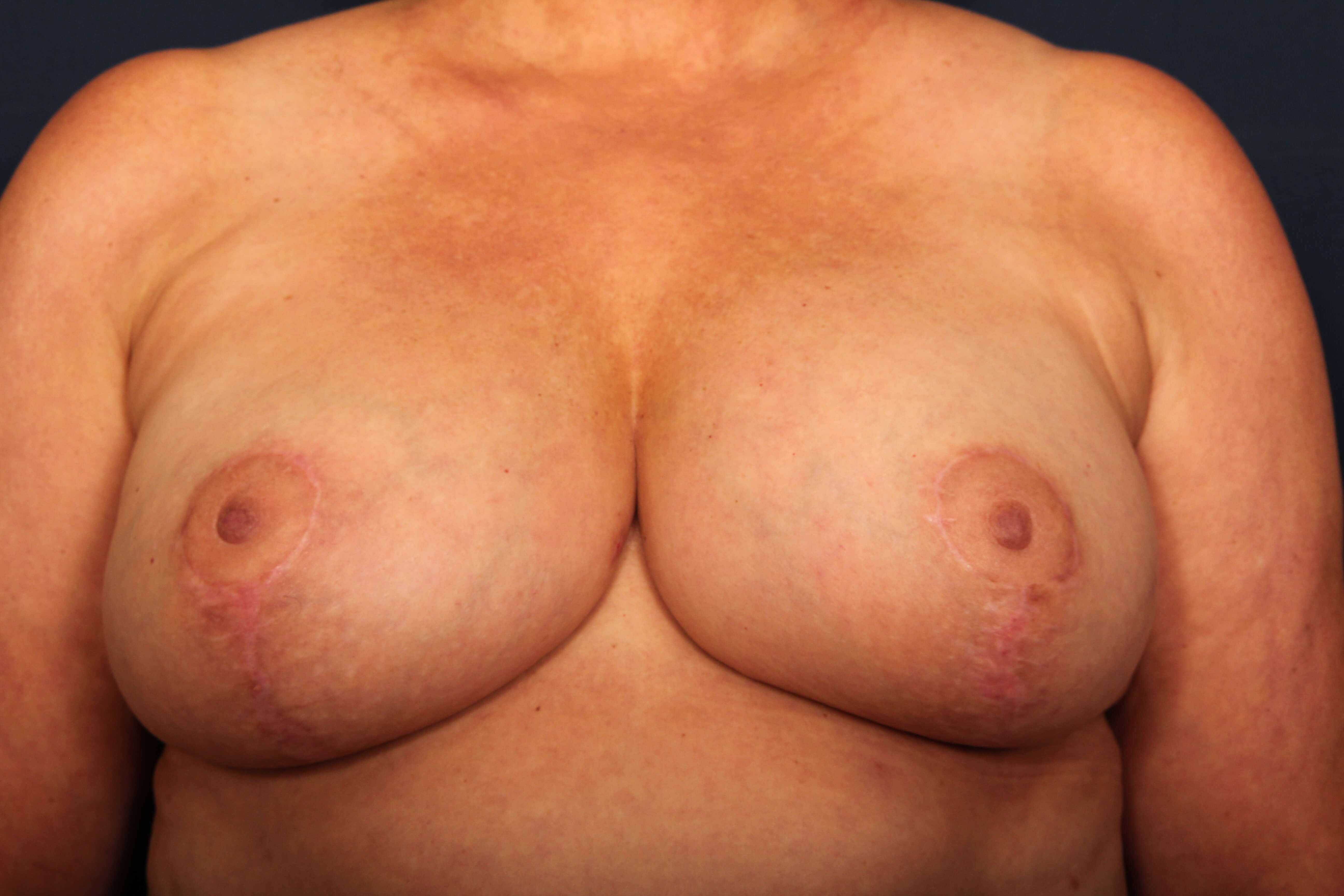 Breast Lift w/ Implants After