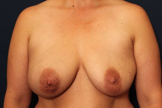 Breast Lift w/ Implants Before