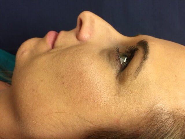 Open Rhinoplasty Before