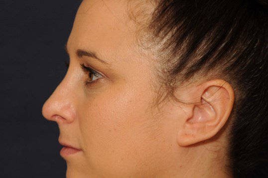 Open Rhinoplasty After
