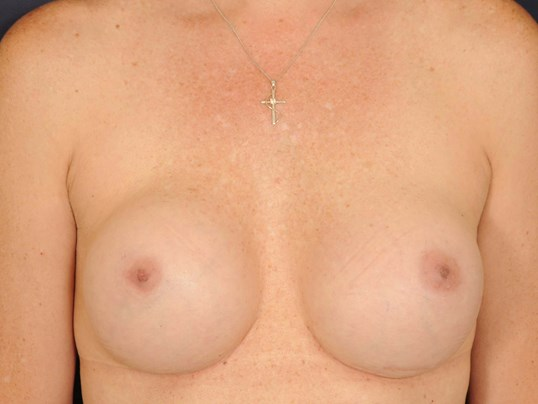 Breast Revision/Exchange Before