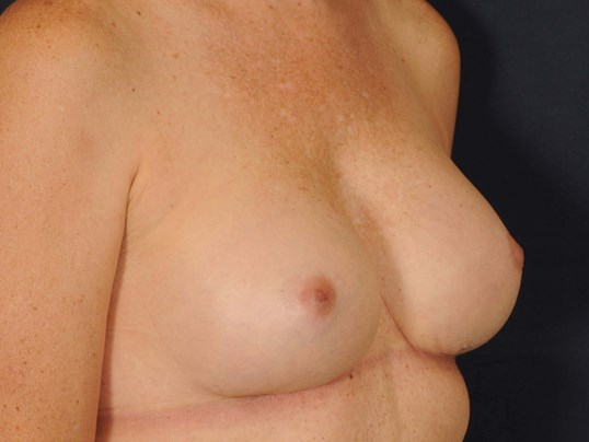 Breast Revision/Exchange After