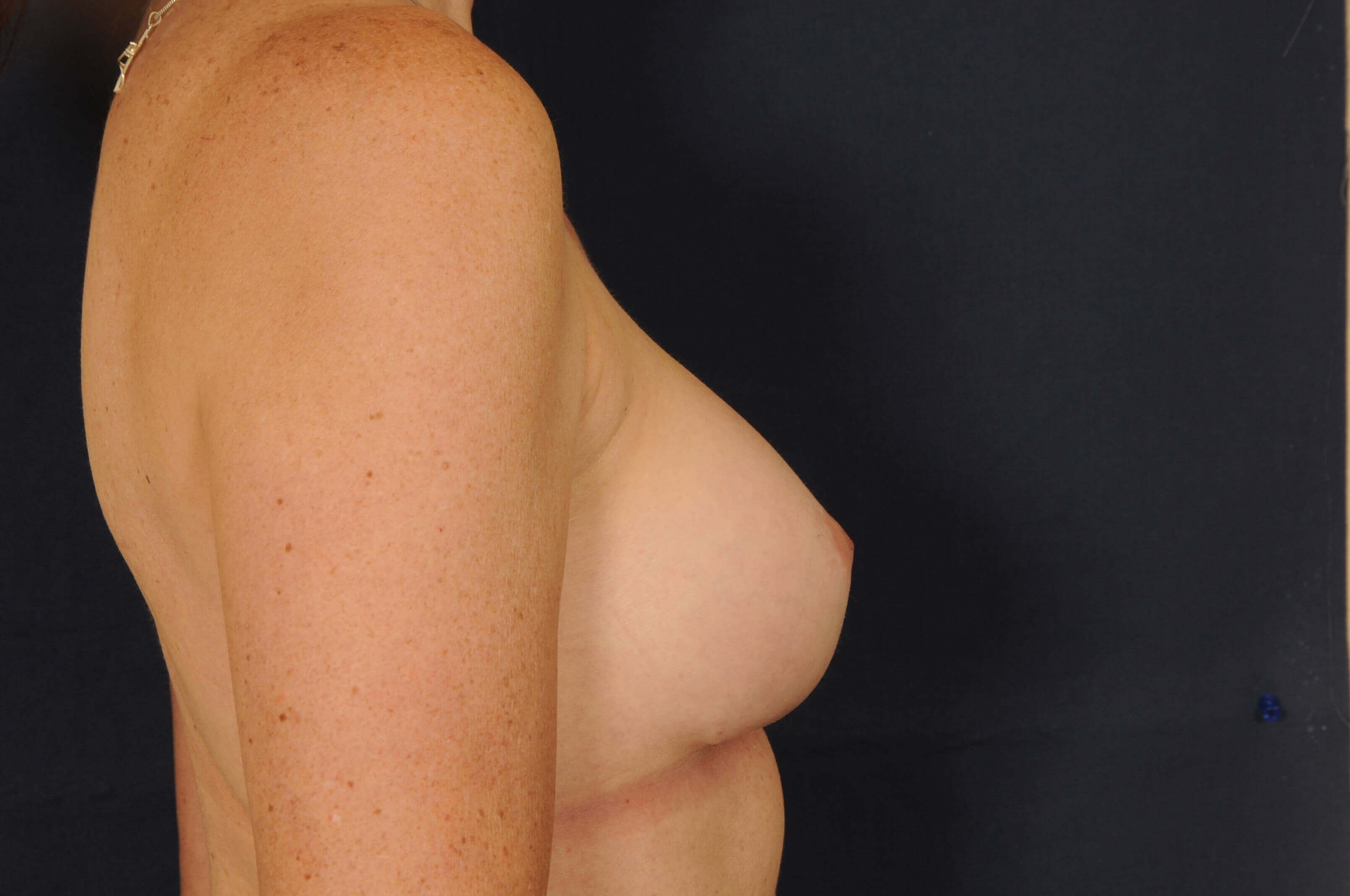 Breast Revision/Excision After