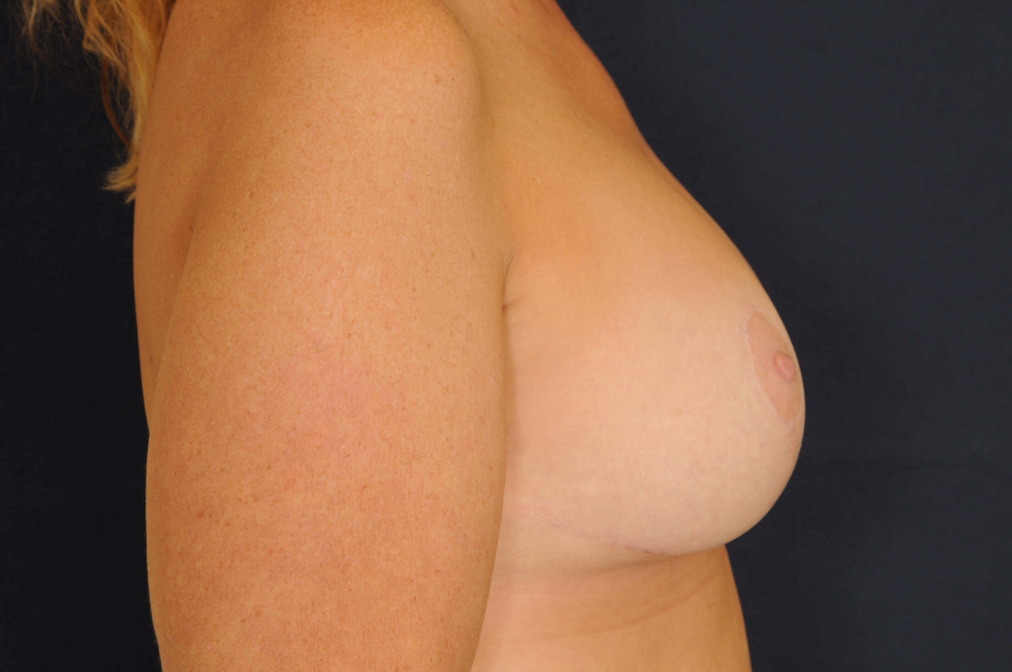 Breast Augmentation w/ Lift After