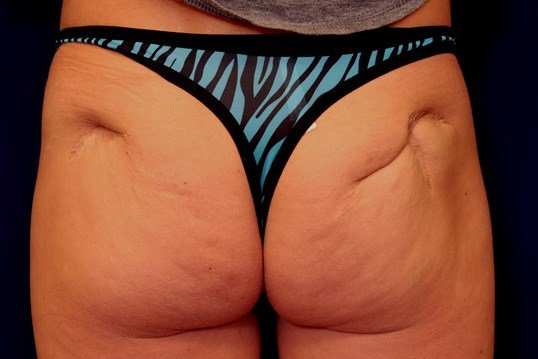 Buttock Scar Revision/Excision Procedure 1 Before