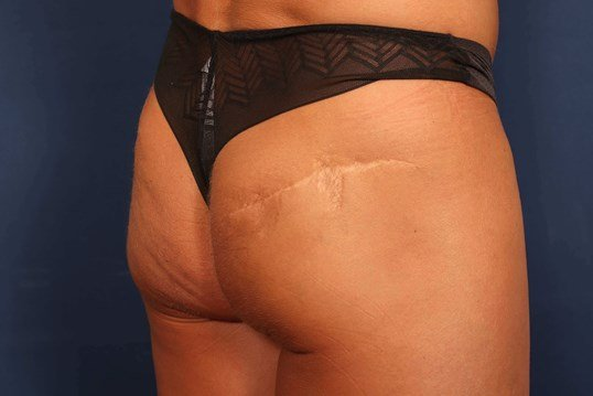 Buttock Scar Revision/Excision Procedure 2 Before