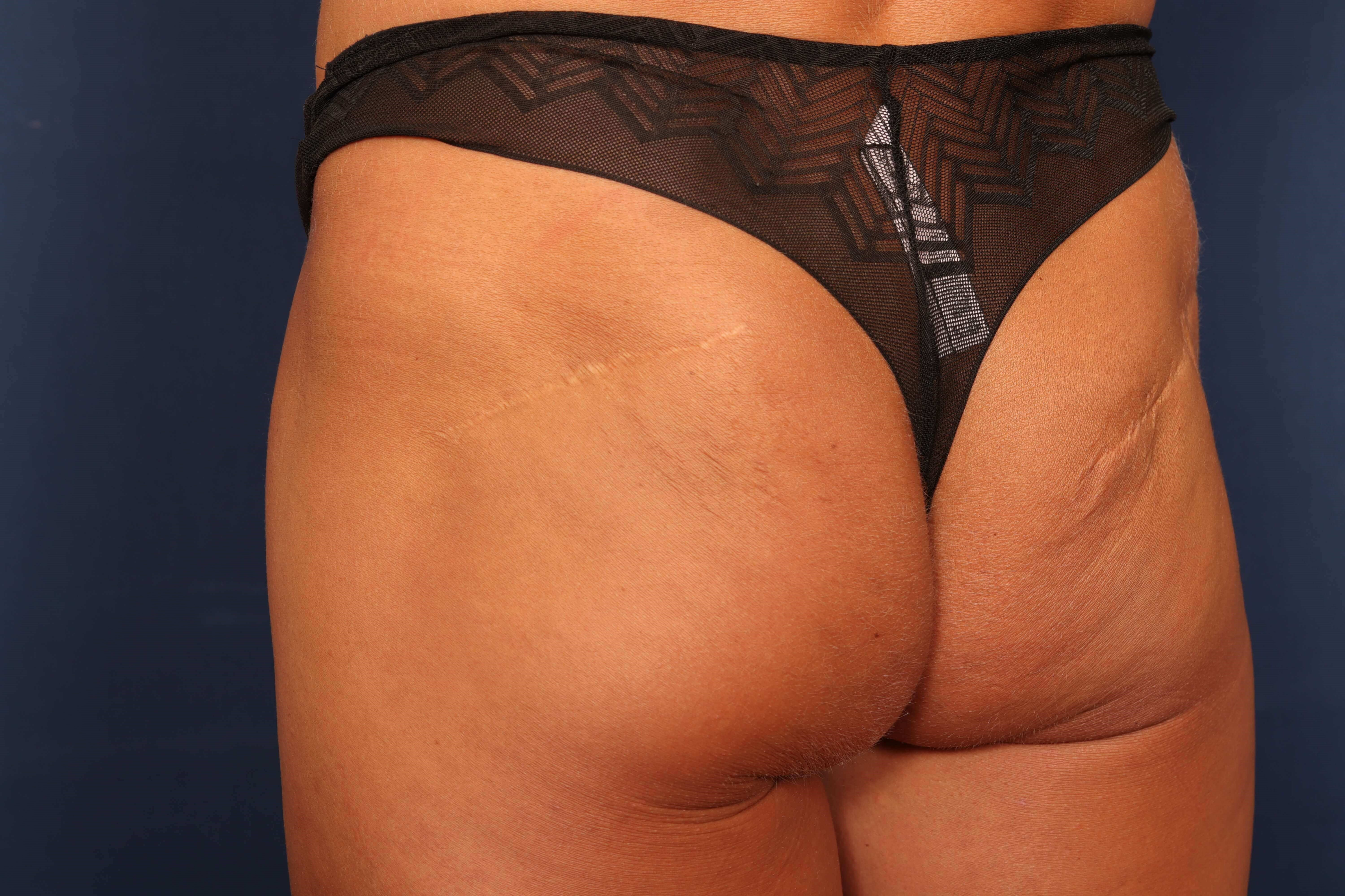 Buttock Scar Revision/Excision Procedure 1 After