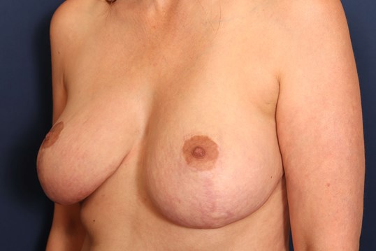 Revision Mastopexy Before