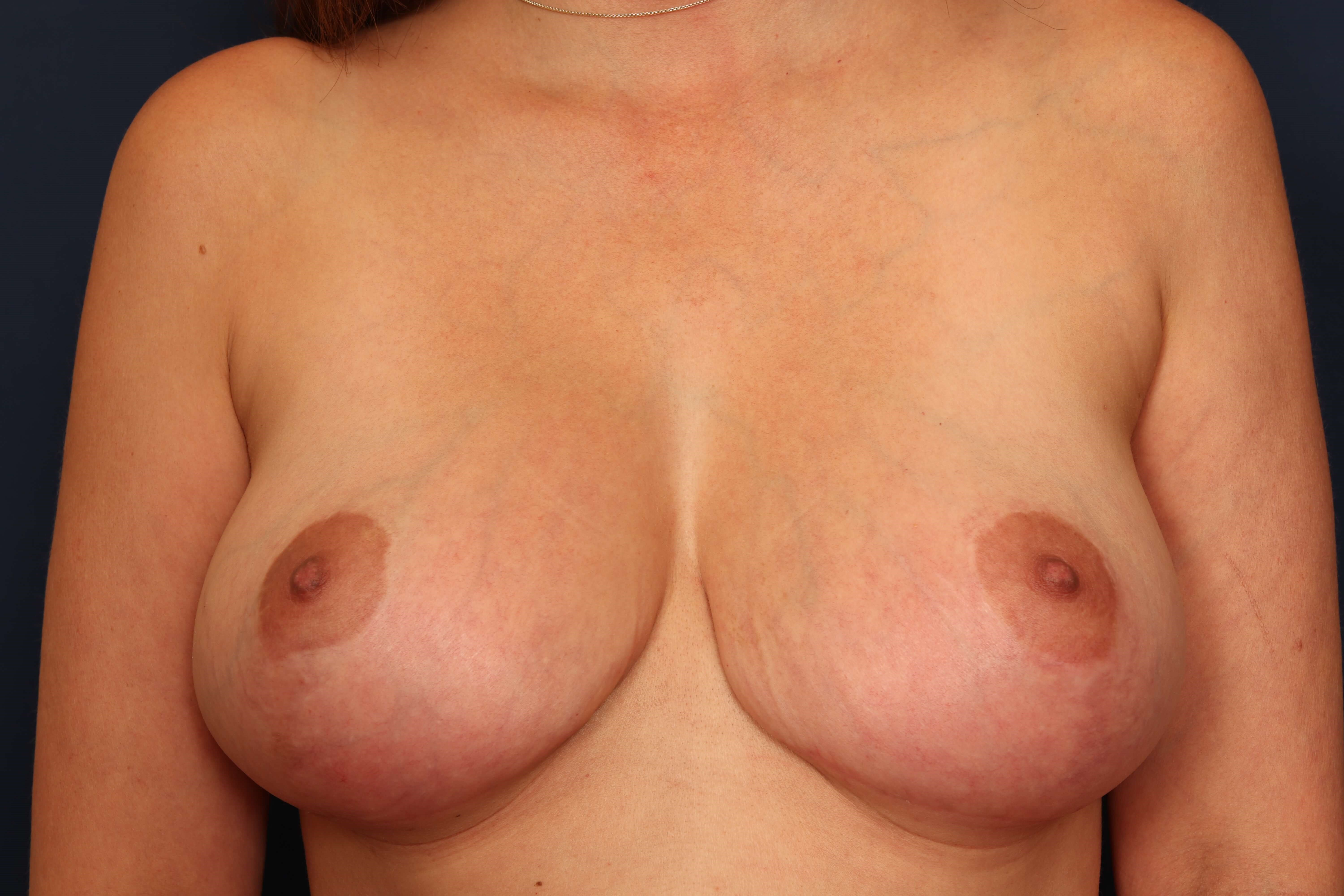 Revision Mastopexy After