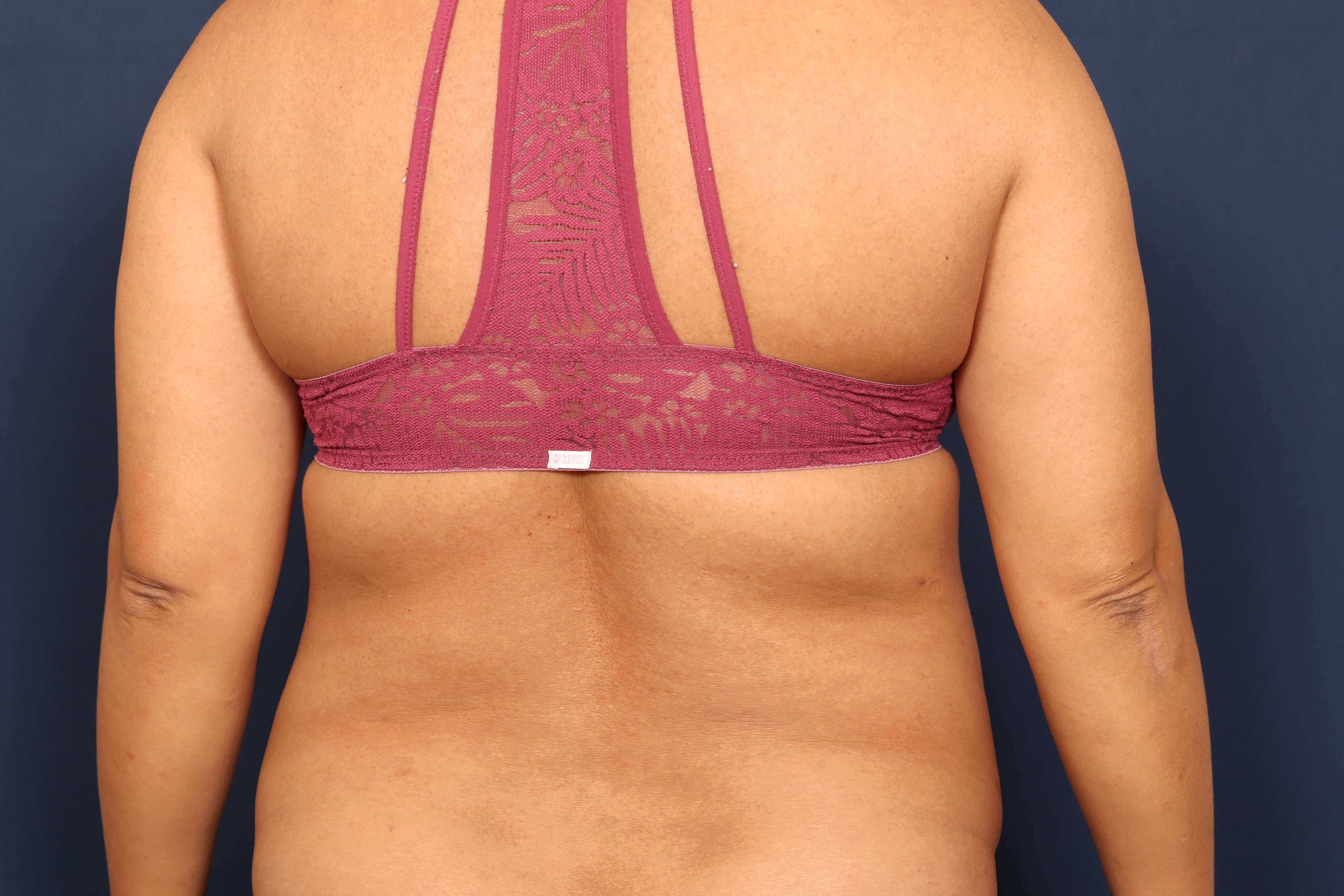 Liposuction of Back and Hips Before