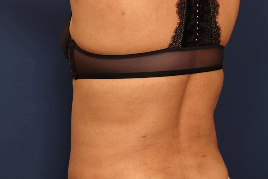 Liposuction of Back and Hips After
