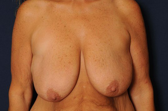 T-Mastopexy with Implants Before