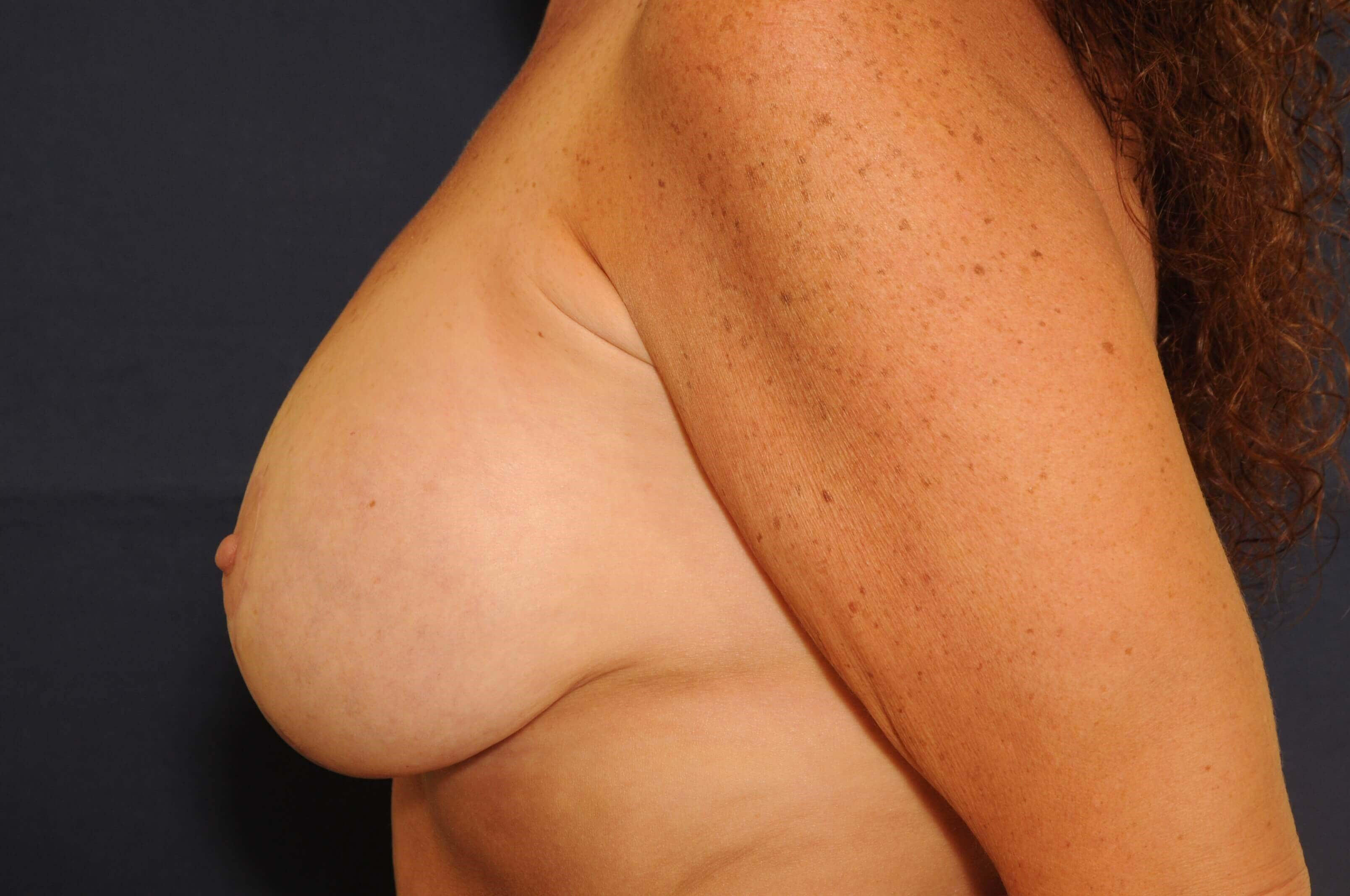 T-Mastopexy with Implants After
