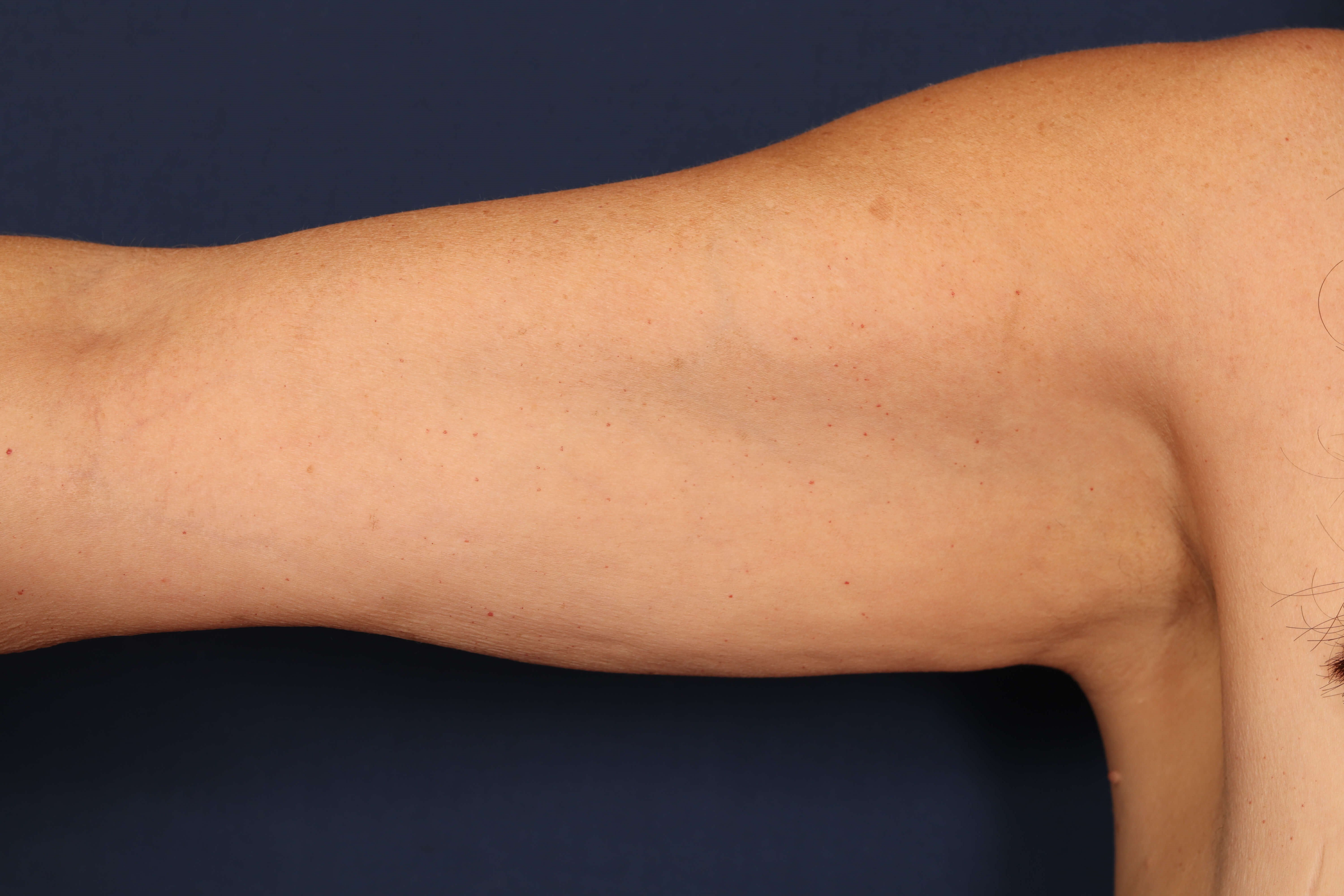 Arm Lift with Liposuction Before