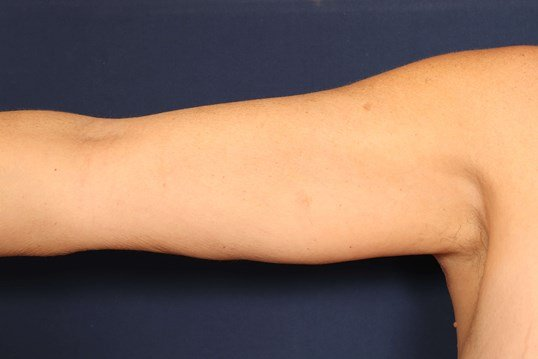 Arm Lift with Liposuction After