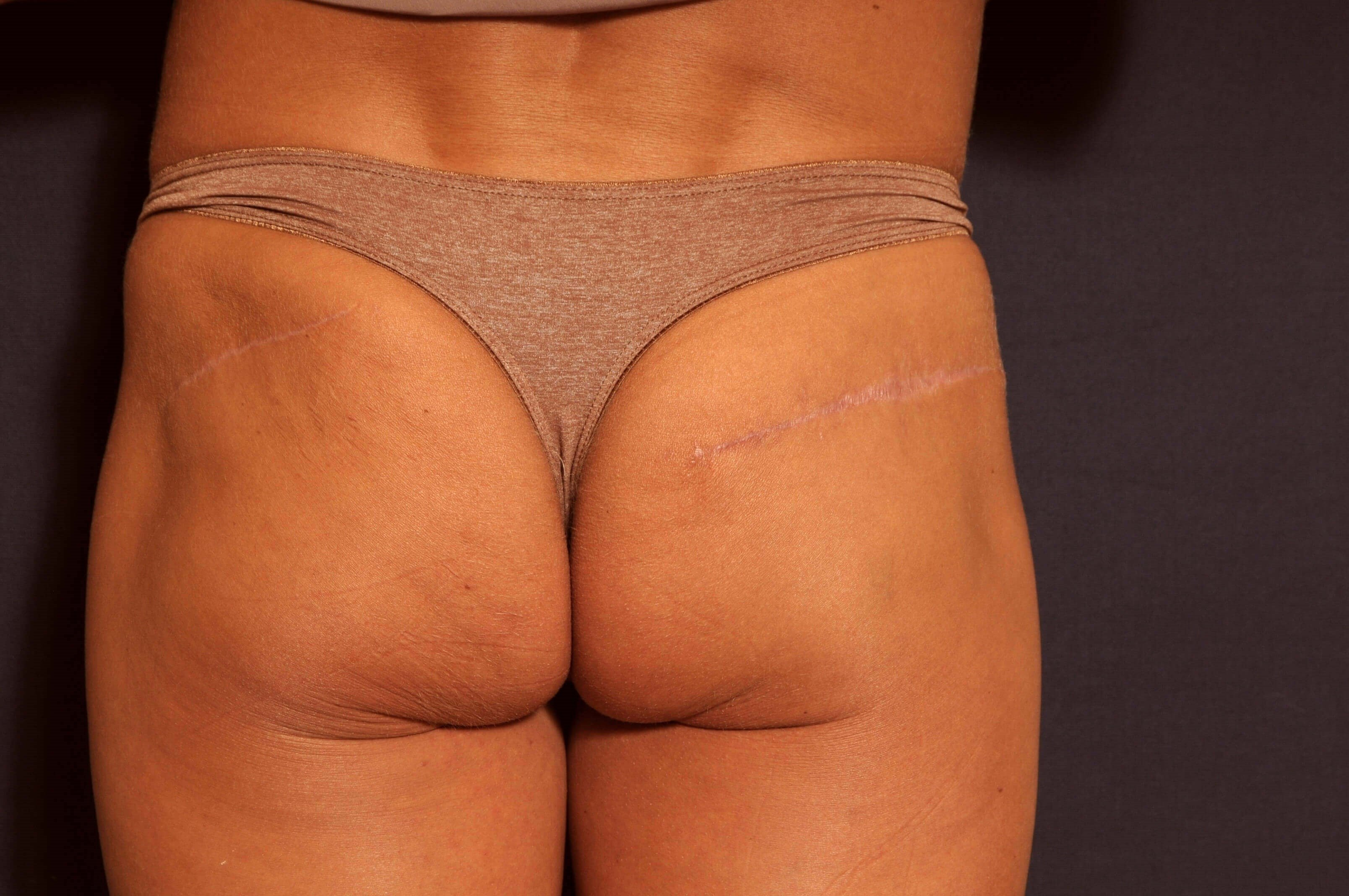 Buttock Scar Revision/Excision Procedure 2 After