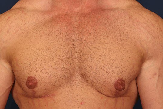 Gynecomastia w/ Breast Lift 7 months After