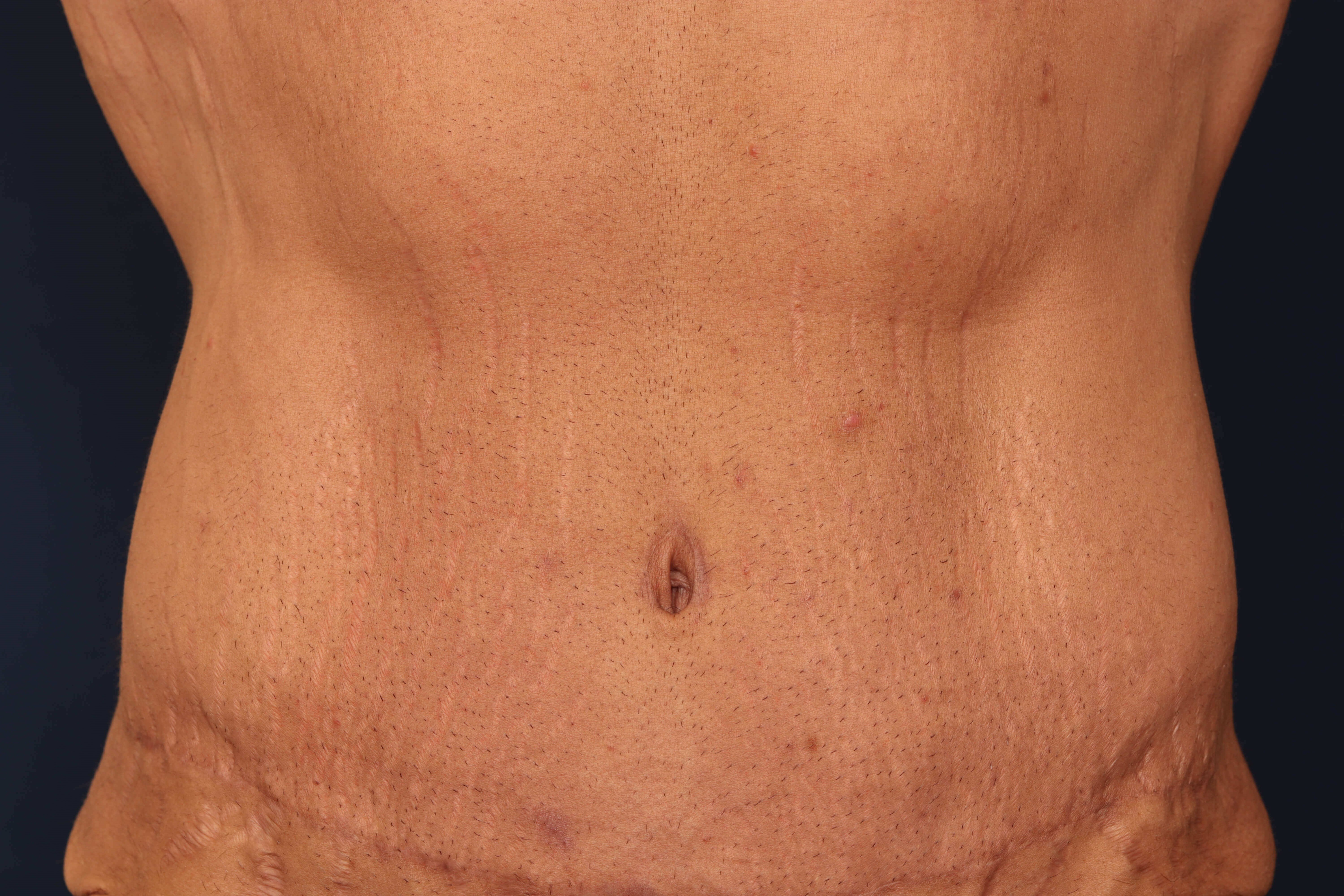 Tummy Tuck w/ Liposuction 7 months after