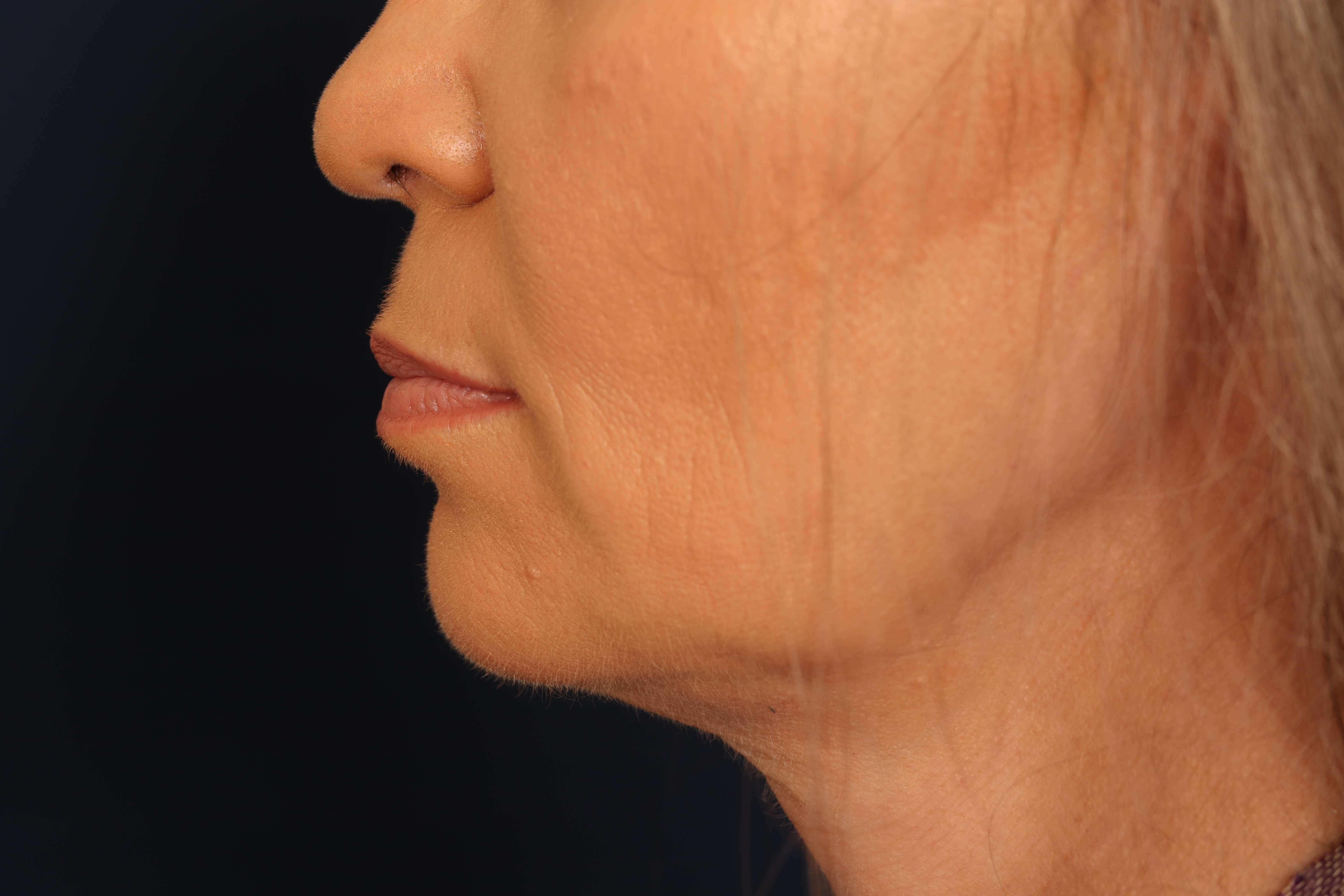 Chin Augmentation After