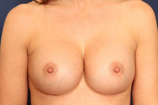Breast Implant Replacement After