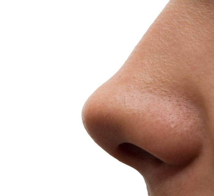 Rhinoplasty: 5 Things to Know