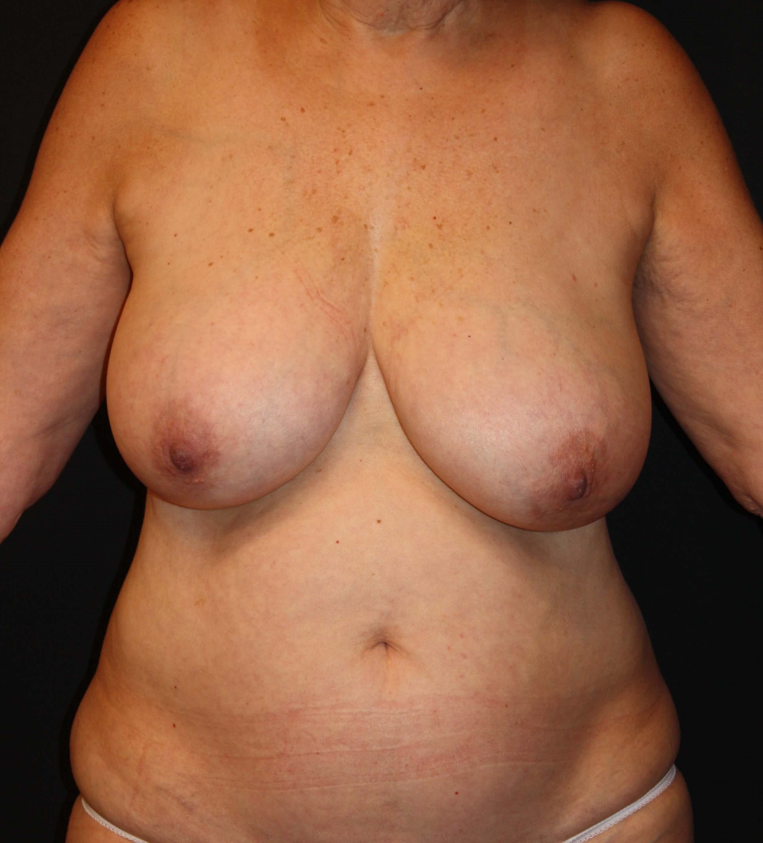 DIEP Flap Front View Before Breast Reconstruction