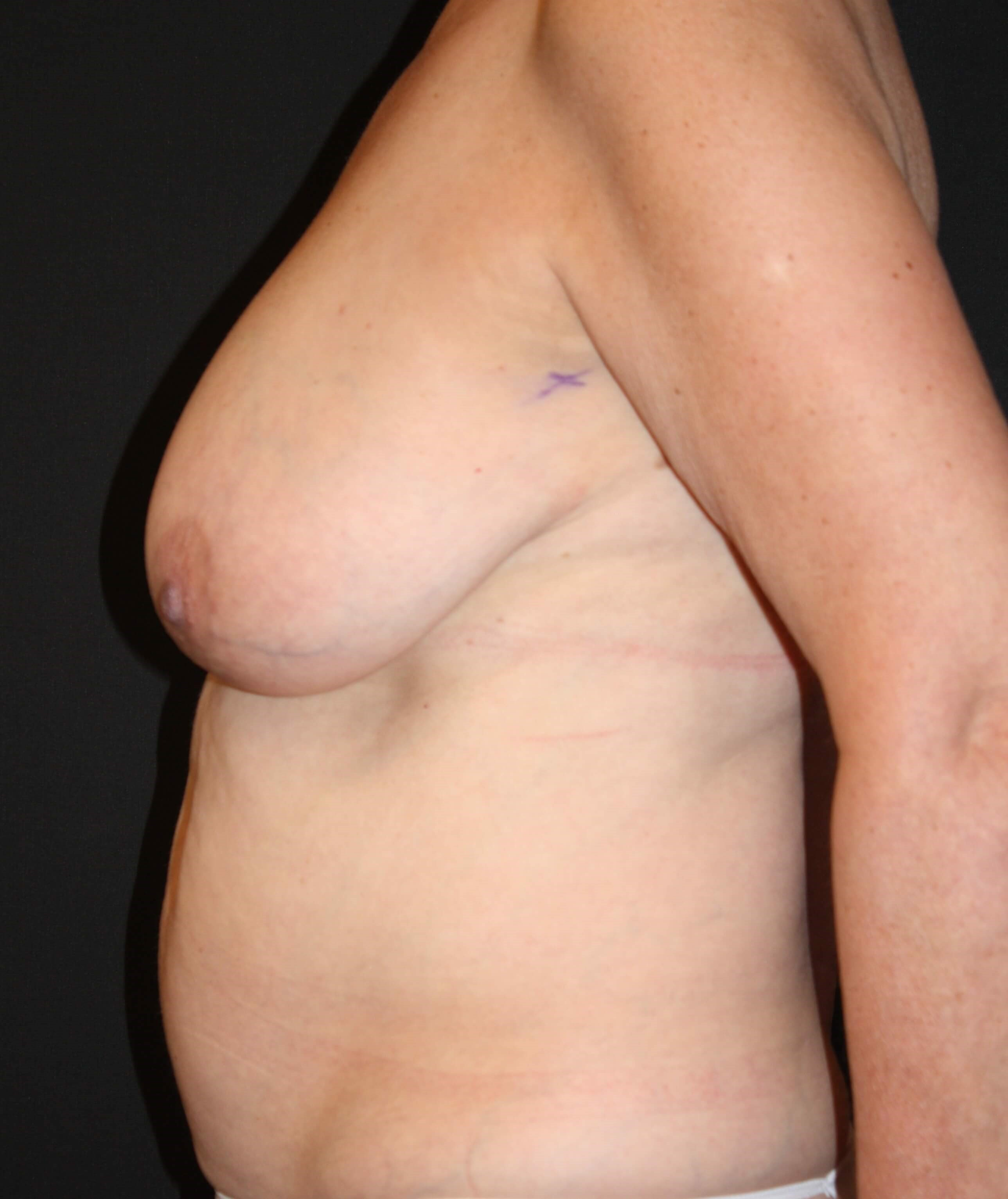 DIEP Flap Side View Before Breast Reconstruction