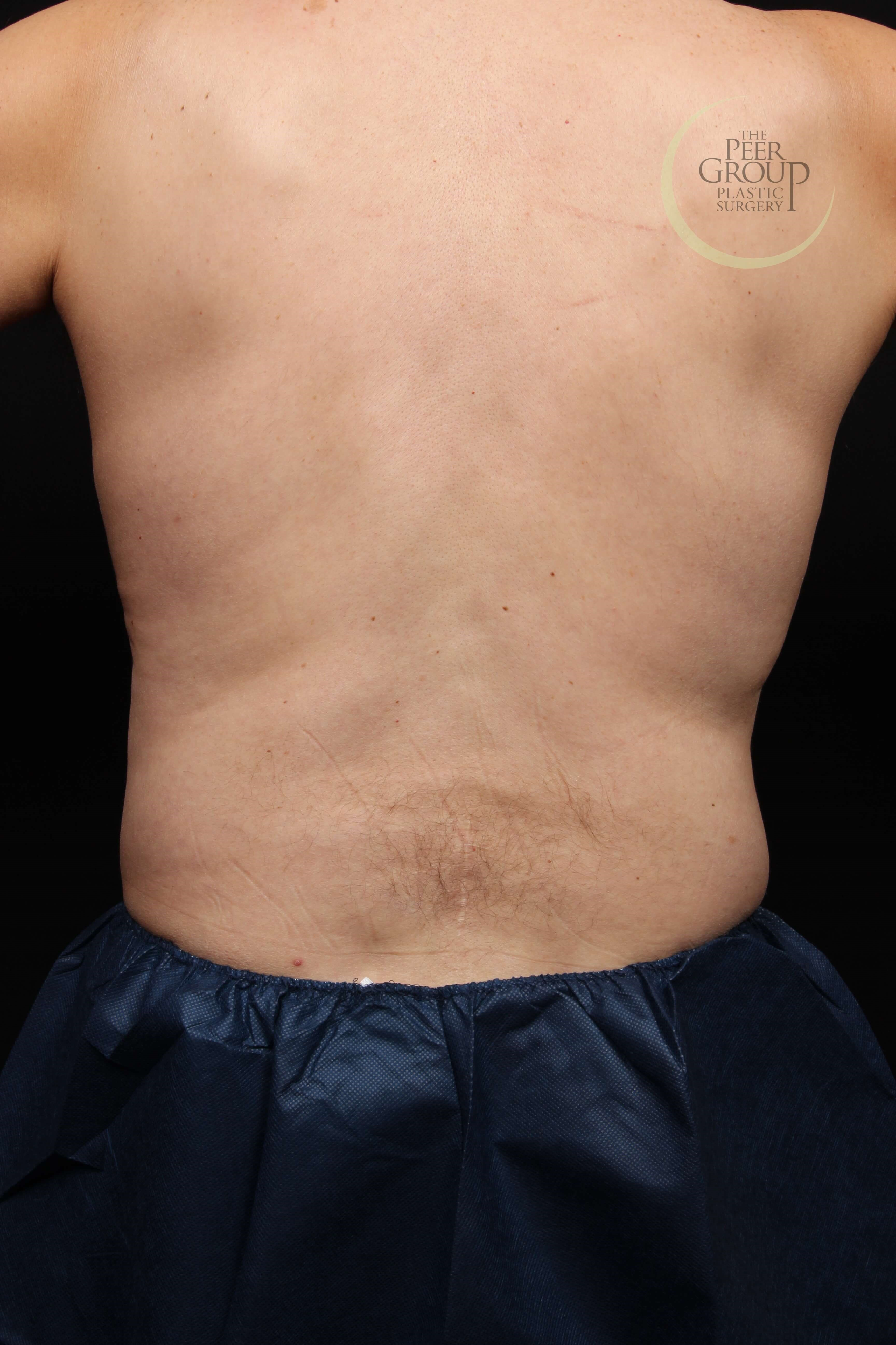 New Jersey CoolSculpting After
