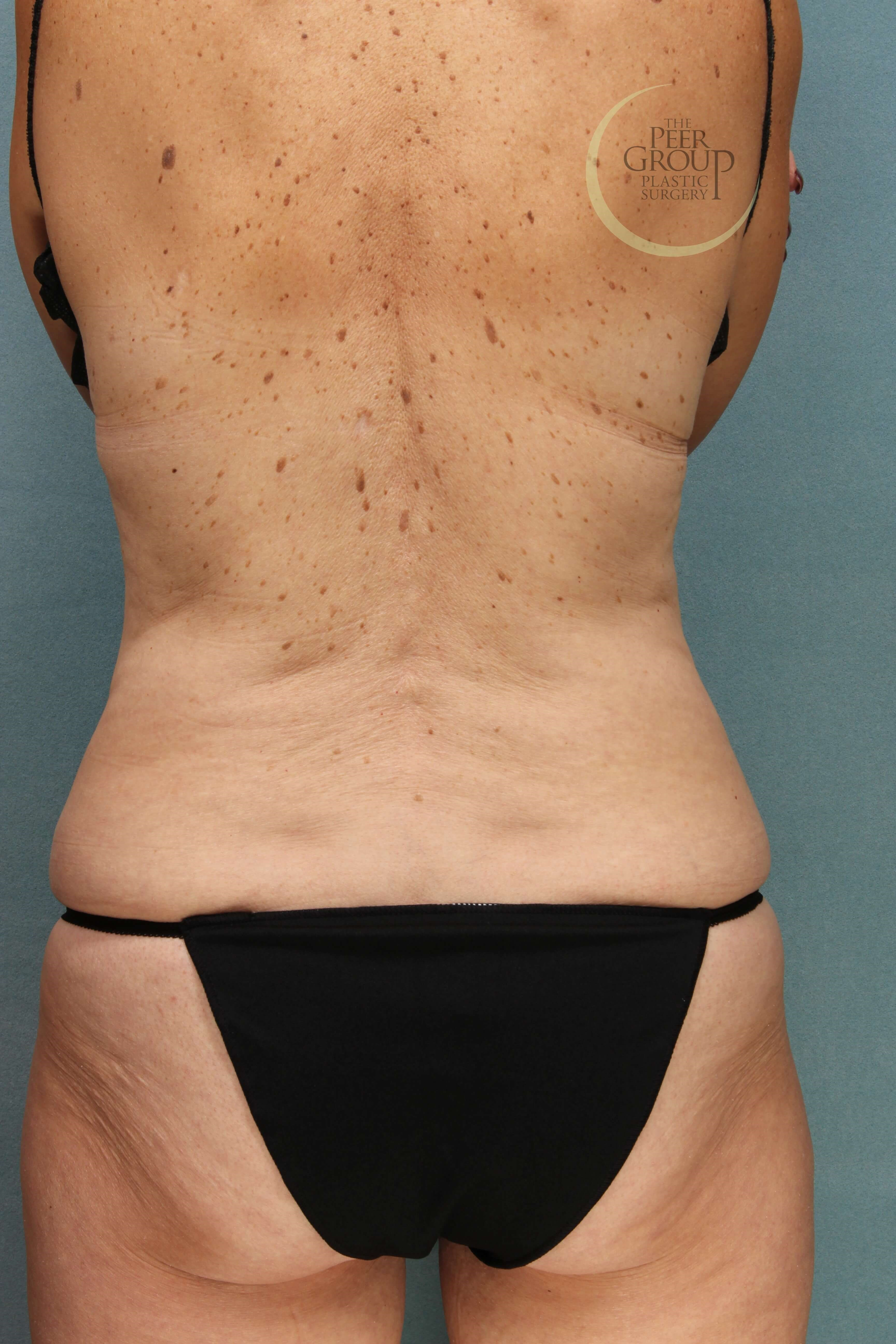Morristown NJ CoolSculpting Before