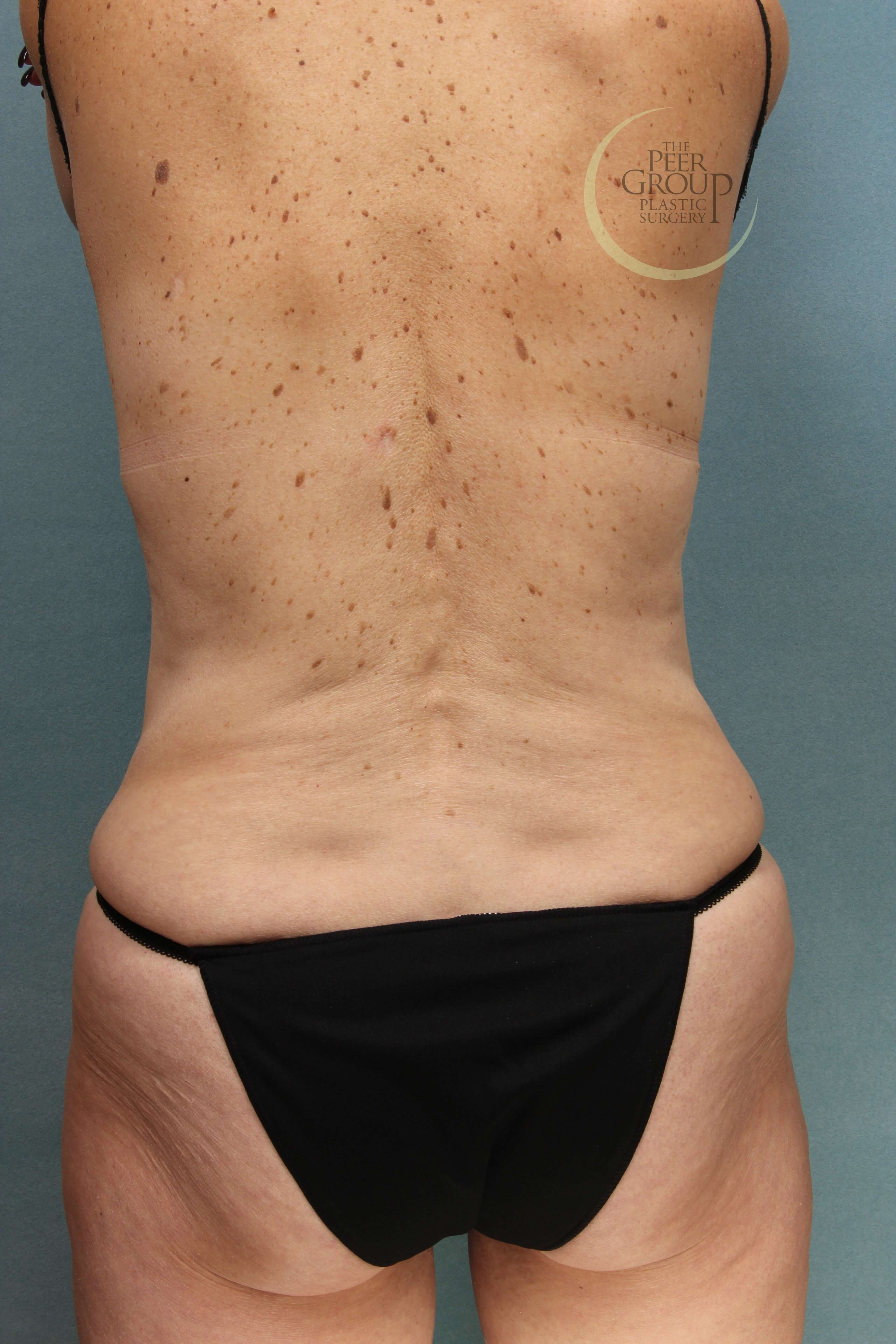 Morristown NJ CoolSculpting After