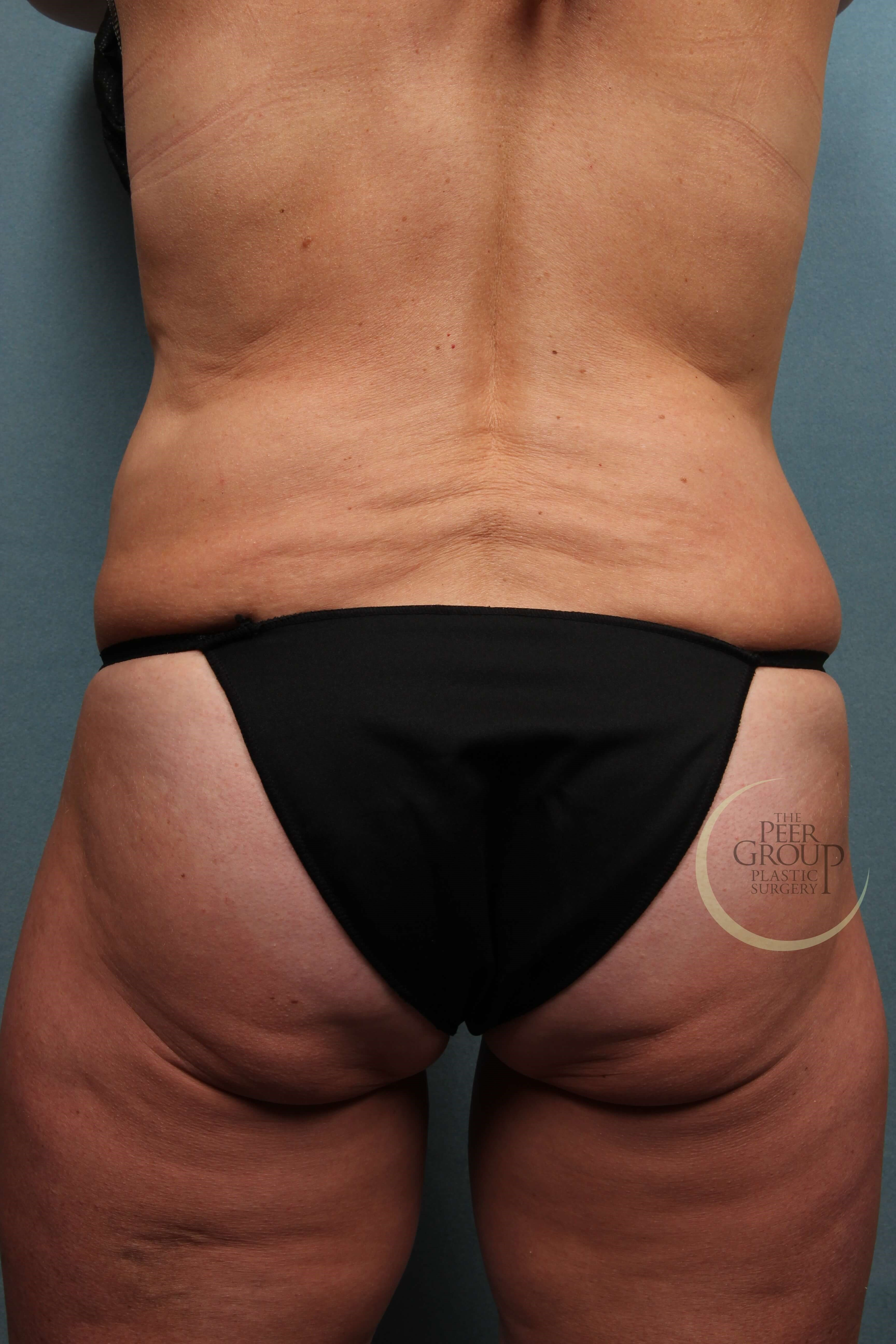 New Jersey CoolSculpting After Coolsculpting