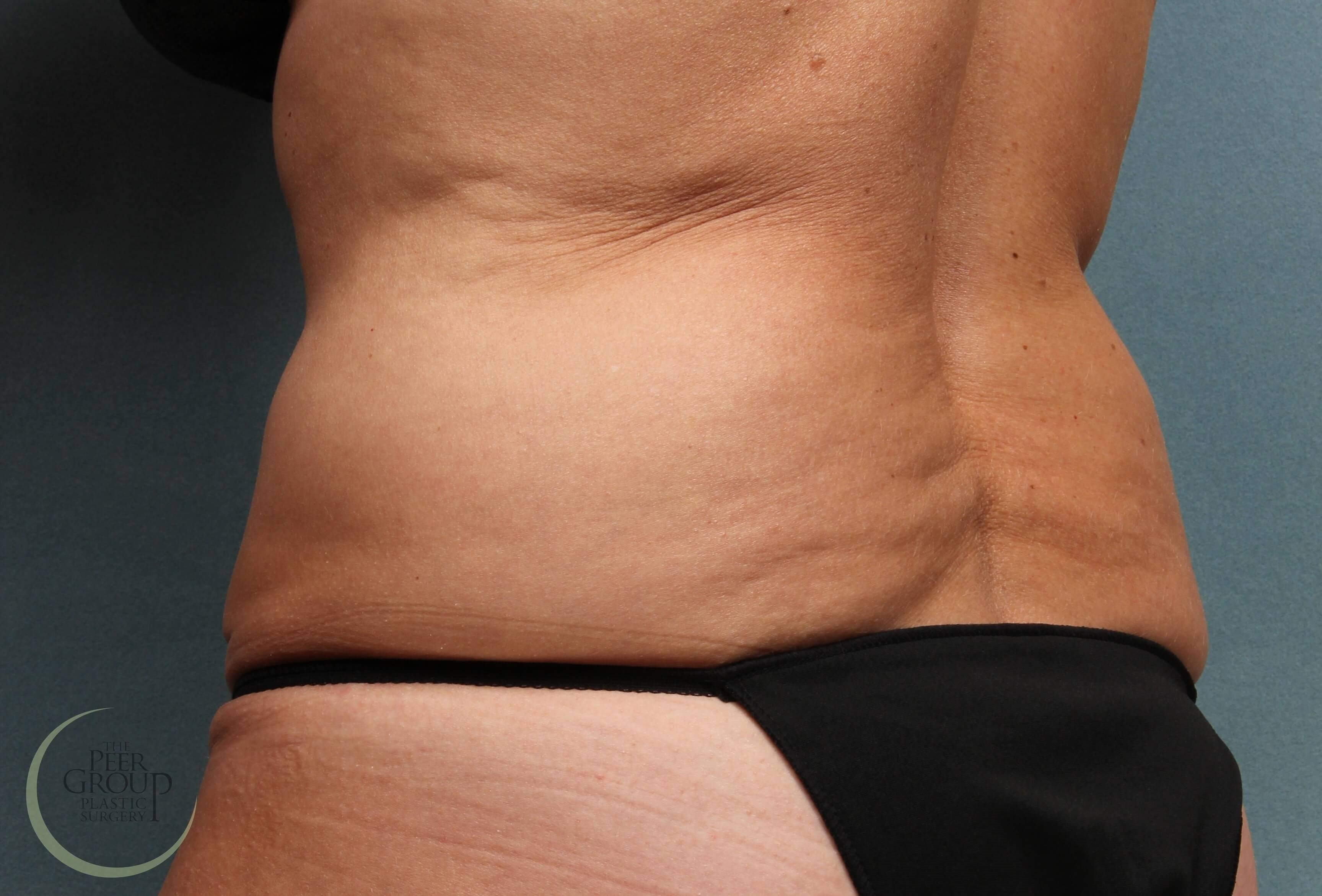 New Jersey CoolSculpting Before CoolSculpting
