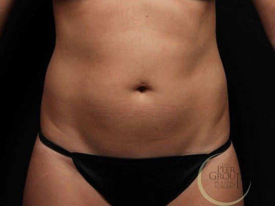 CoolSculpting NJ Front View Before