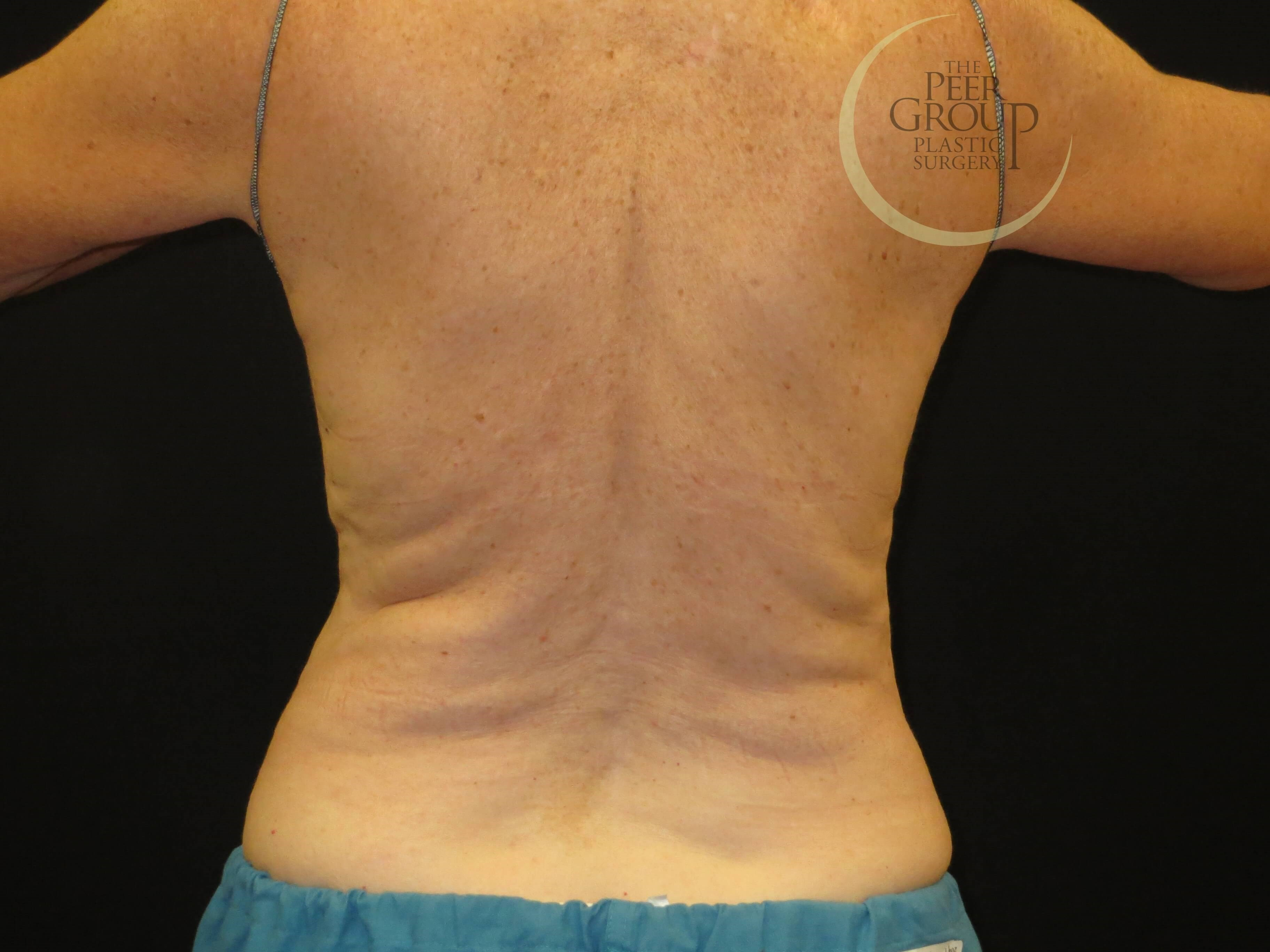 CoolSculpting NJ Back View Before