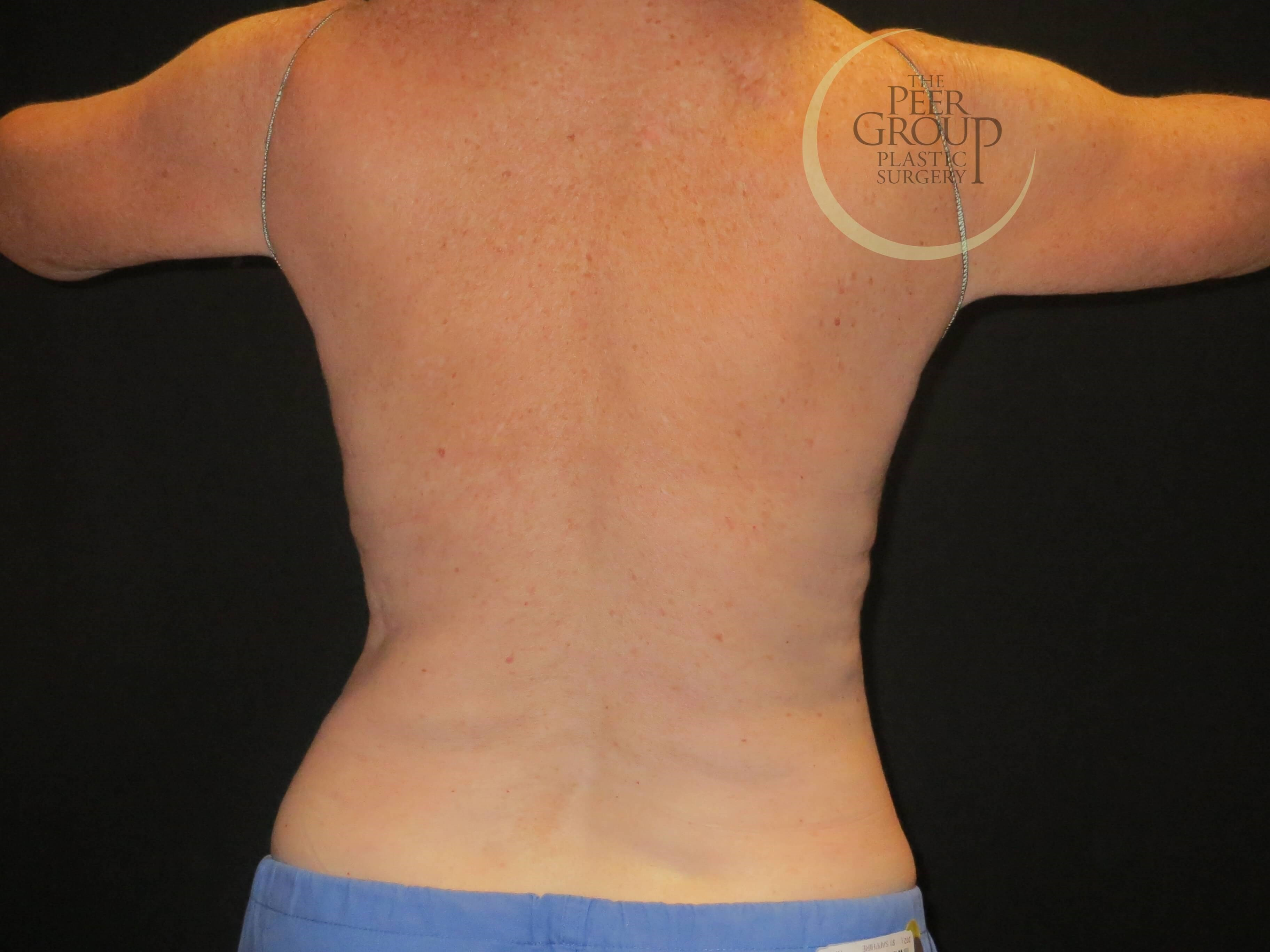 CoolSculpting NJ Back View After