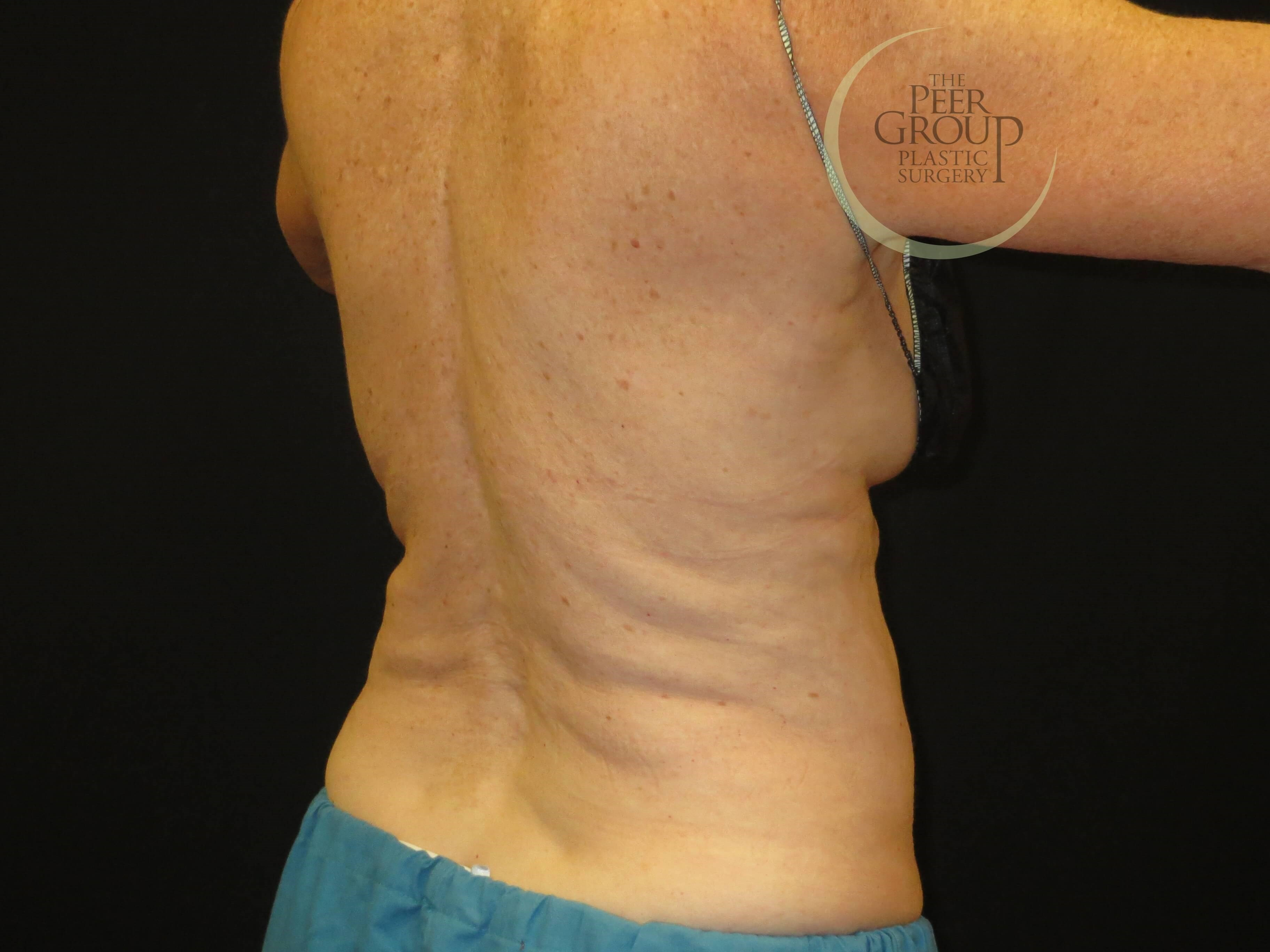 CoolSculpting NJ Side View Before