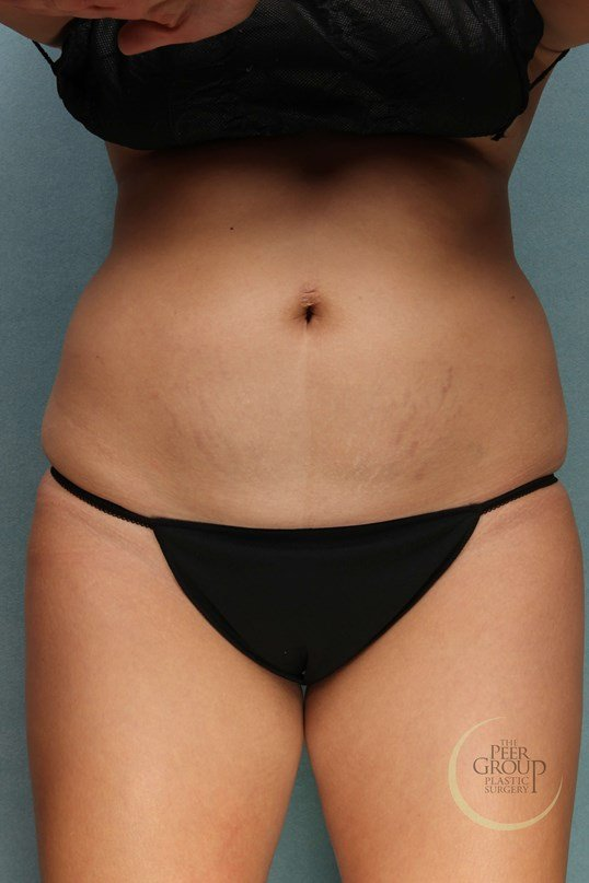 NJ CoolSculpting Front View After