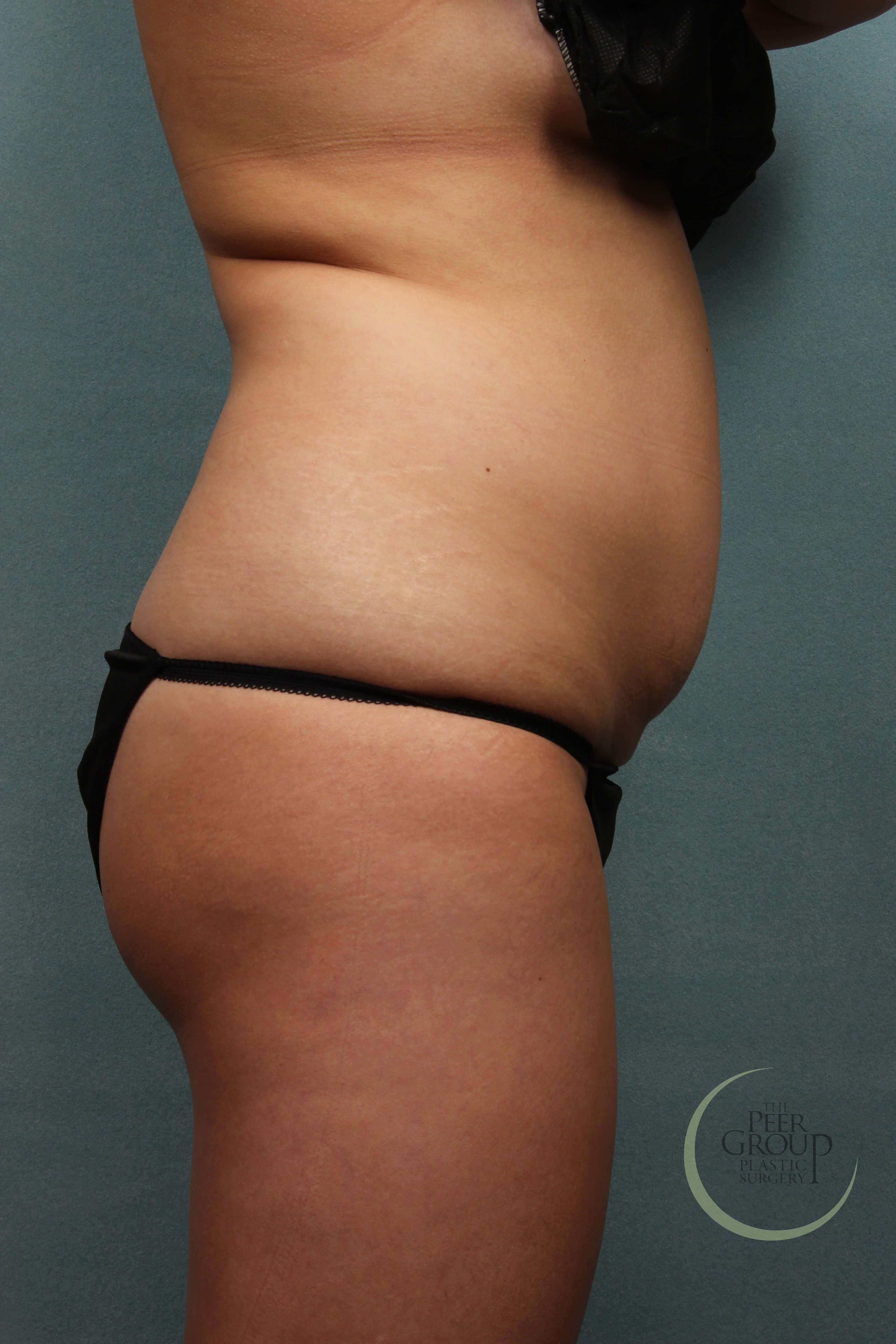 NJ CoolSculpting Side View Before