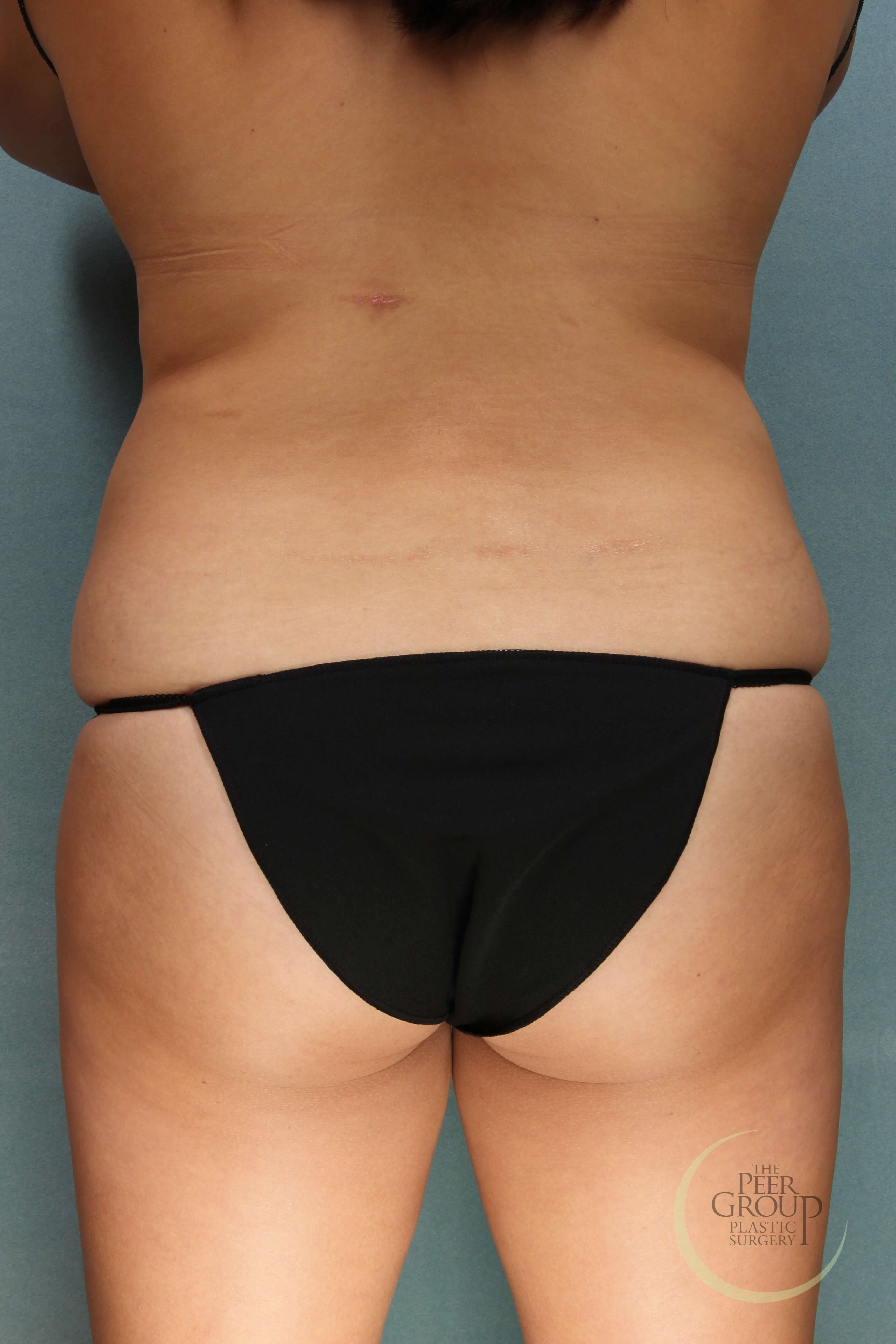 NJ CoolSculpting Side View After