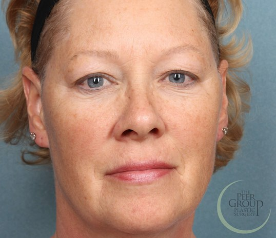 New Jersey Botox 2 Months After Botox