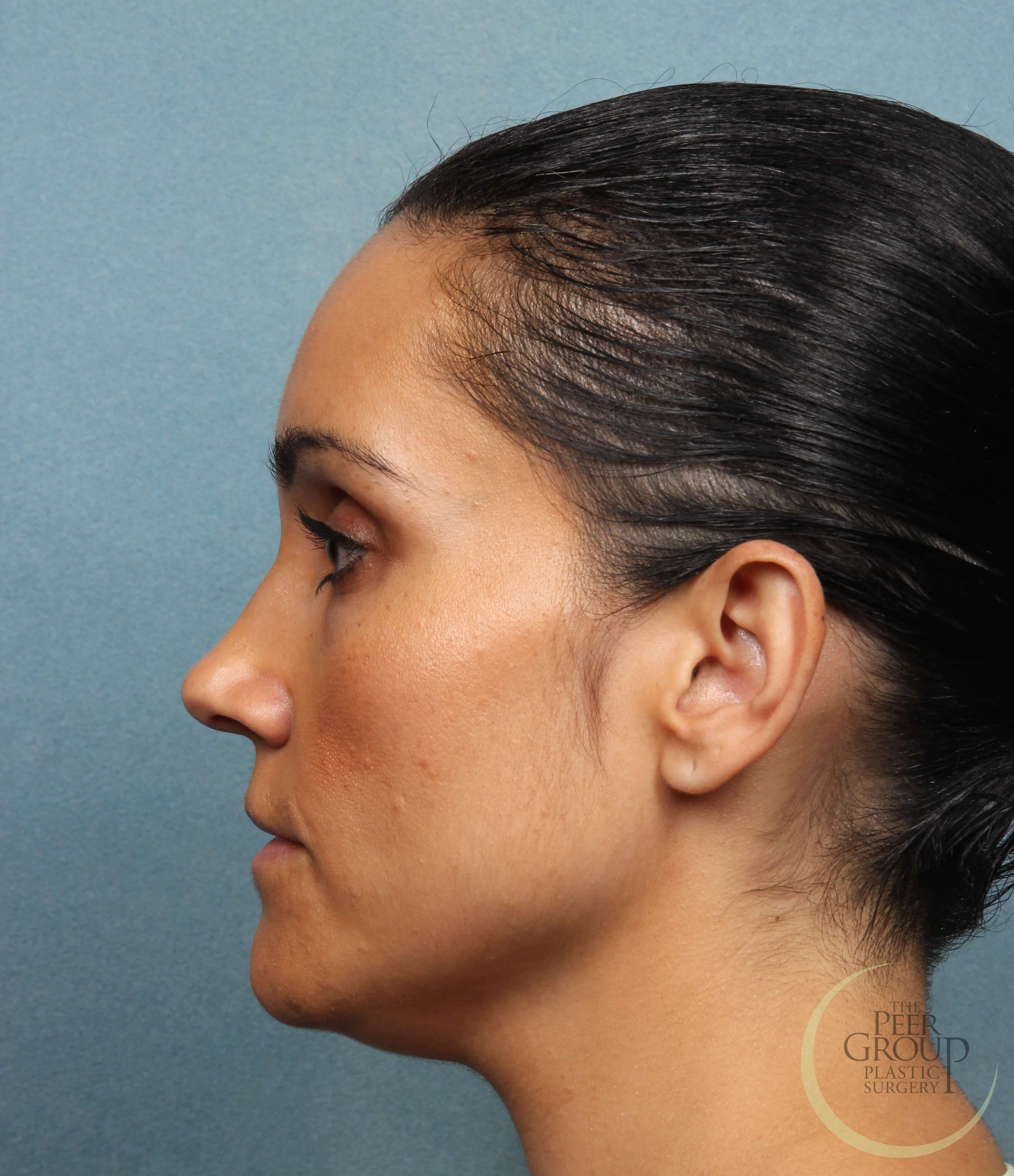 Morristown New Jersey Kybella Before Treatment