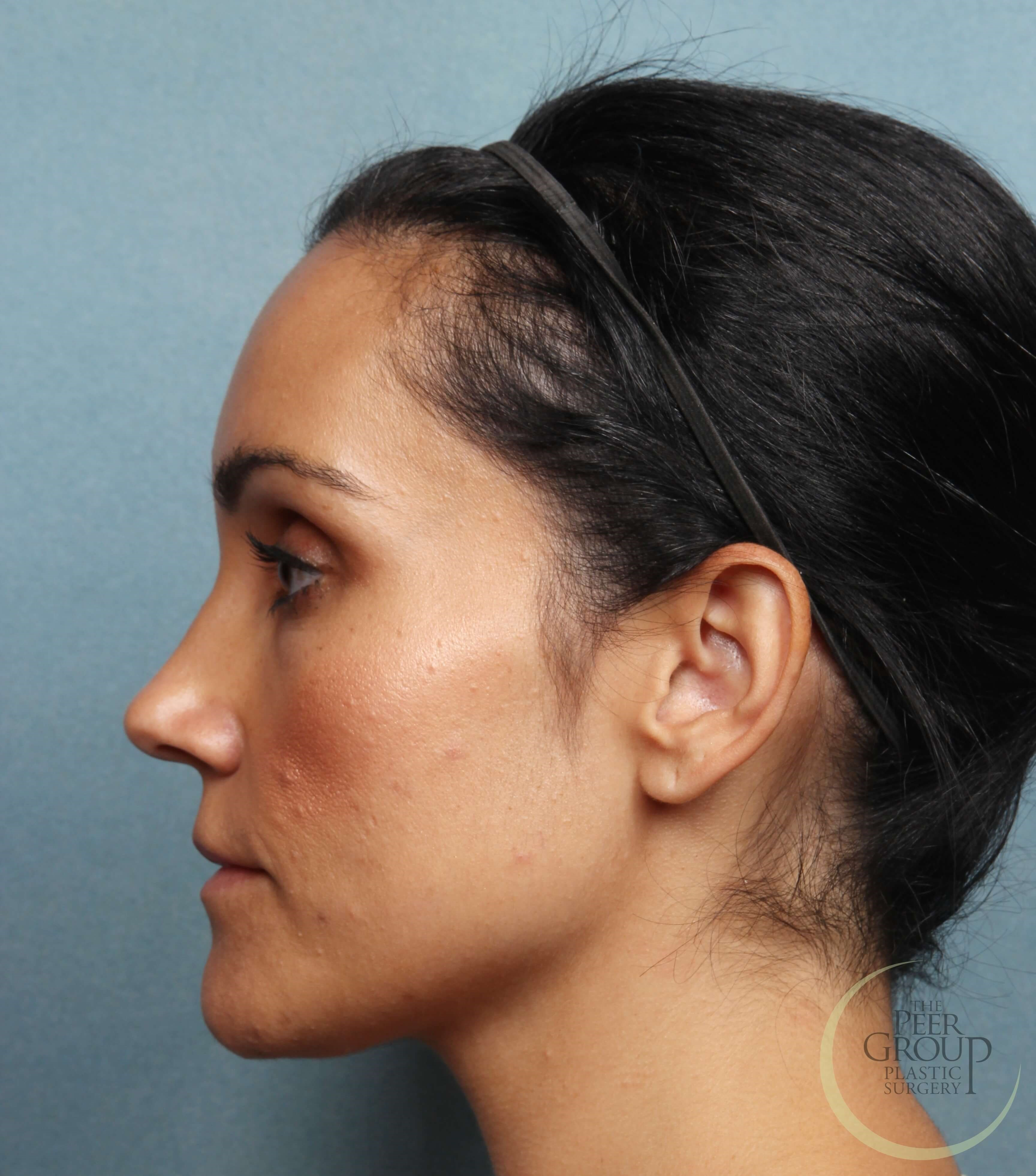 Morristown New Jersey Kybella 12 Weeks After Treatment