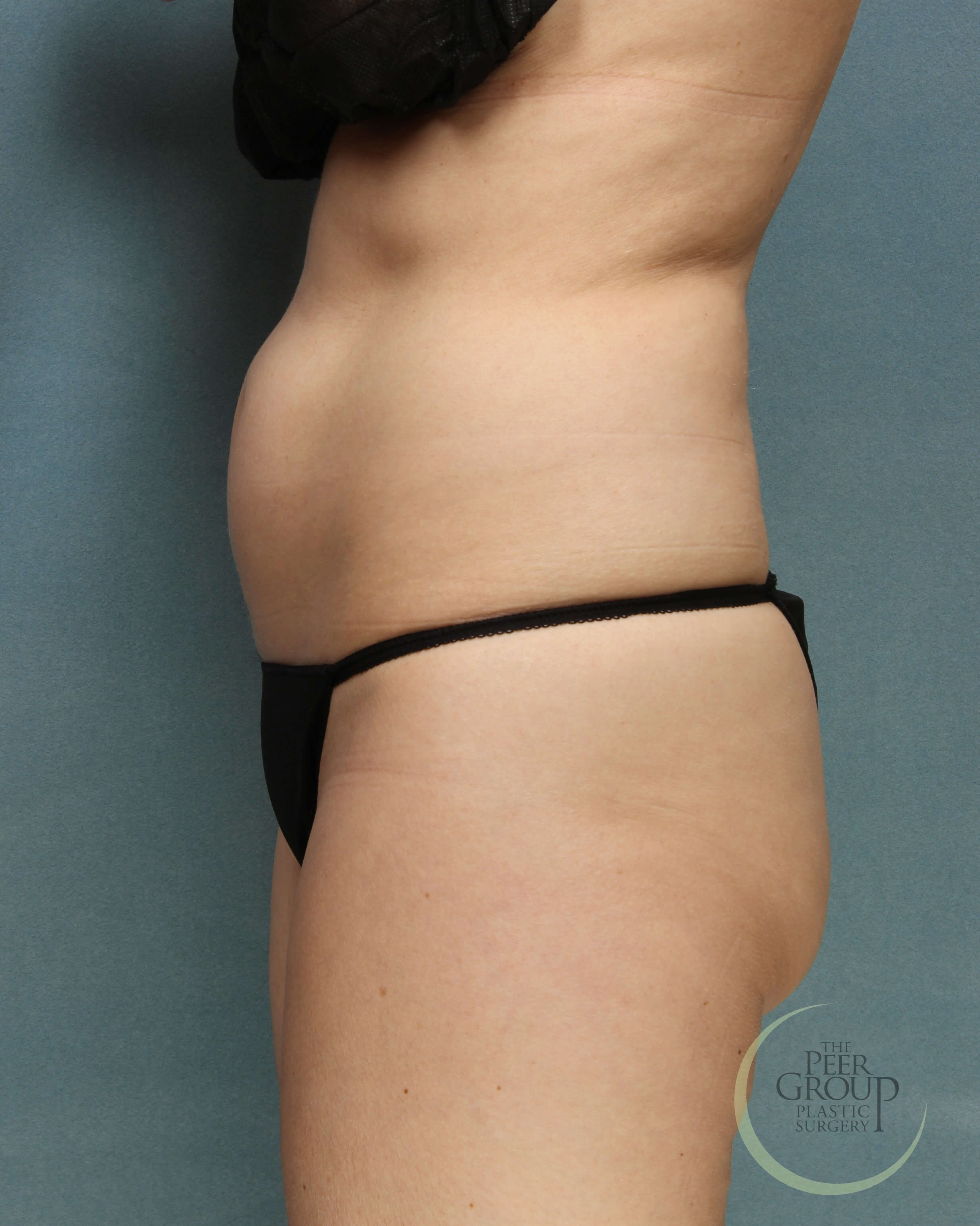 Side View Before CoolSculpting