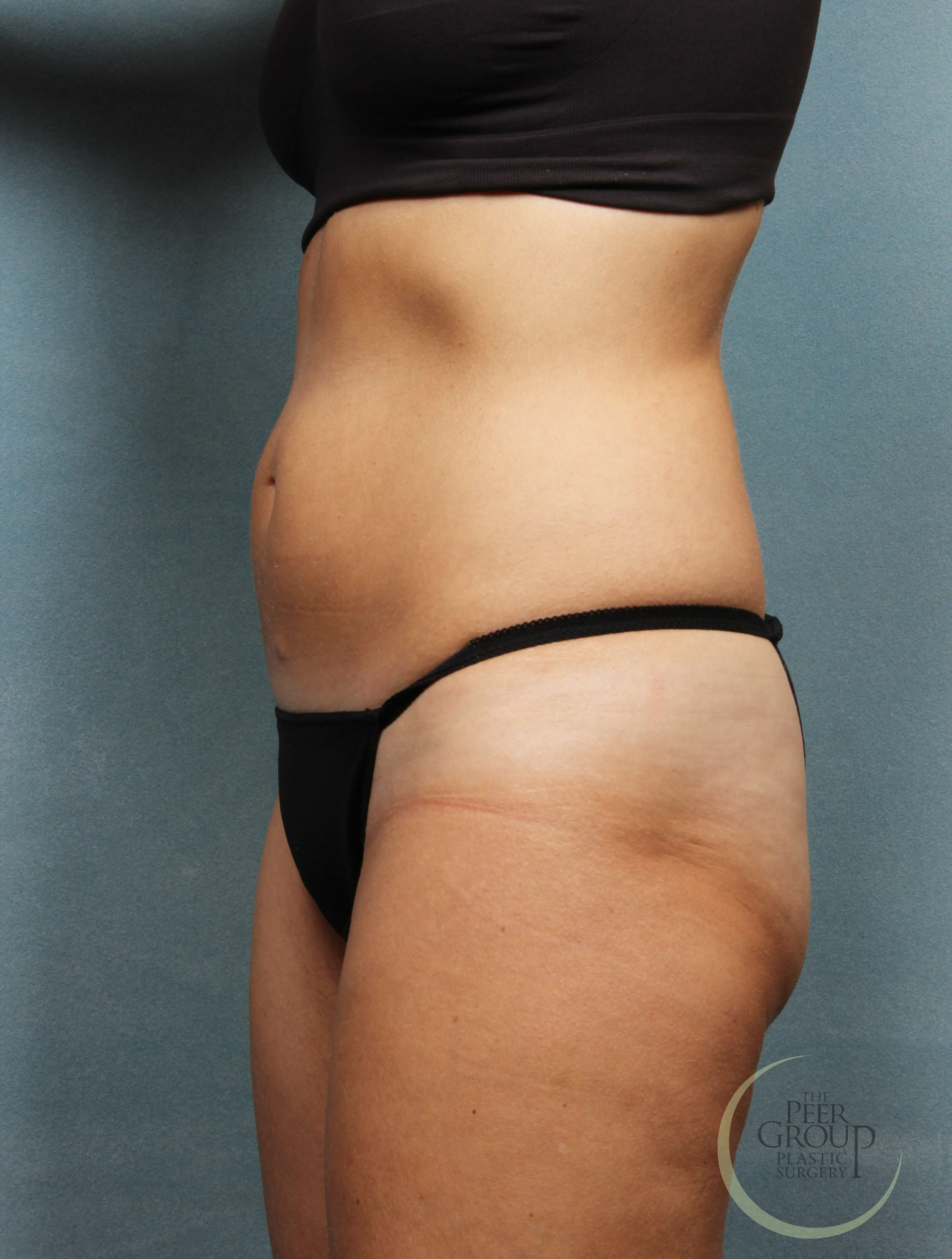 Side View After CoolSculpting