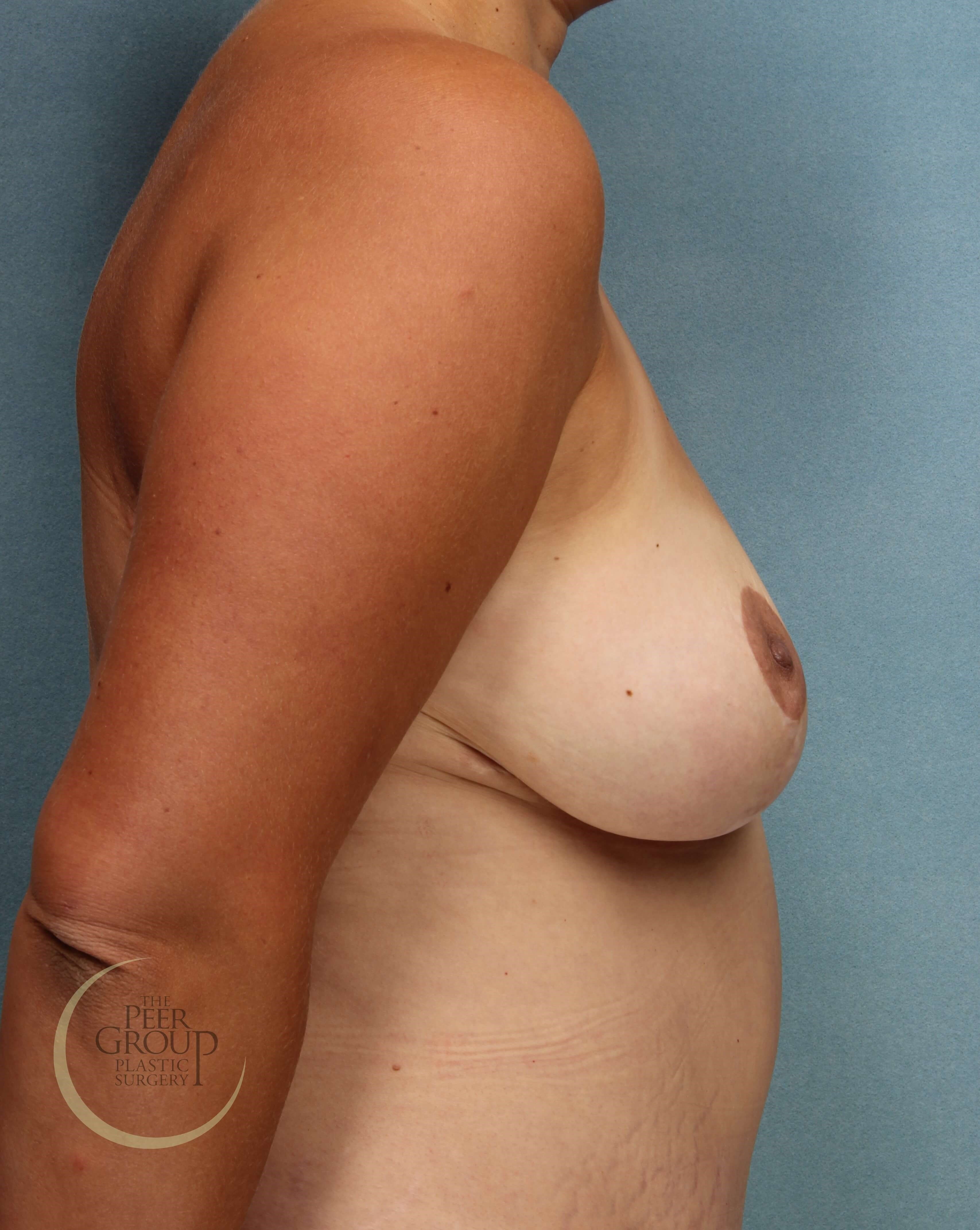Side View After Breast Reduction